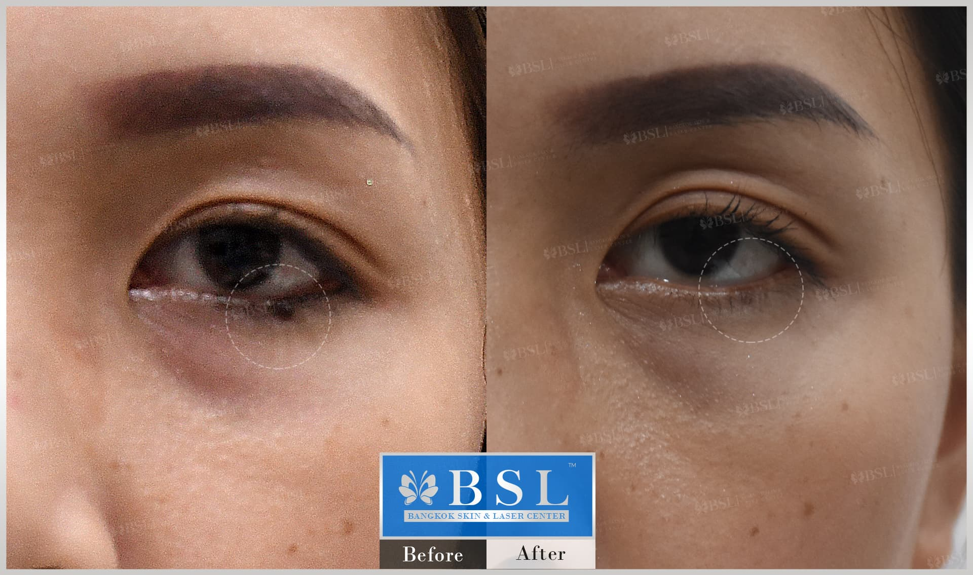 before-after-results-moles-016