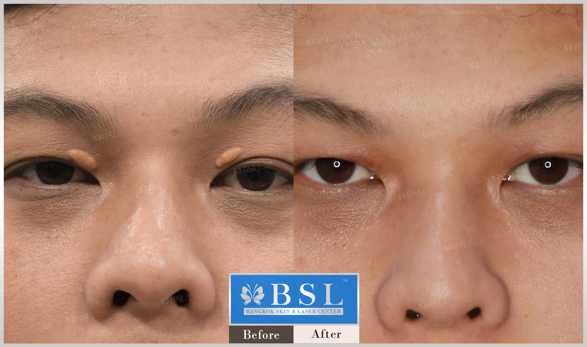 before-after-results-moles-017