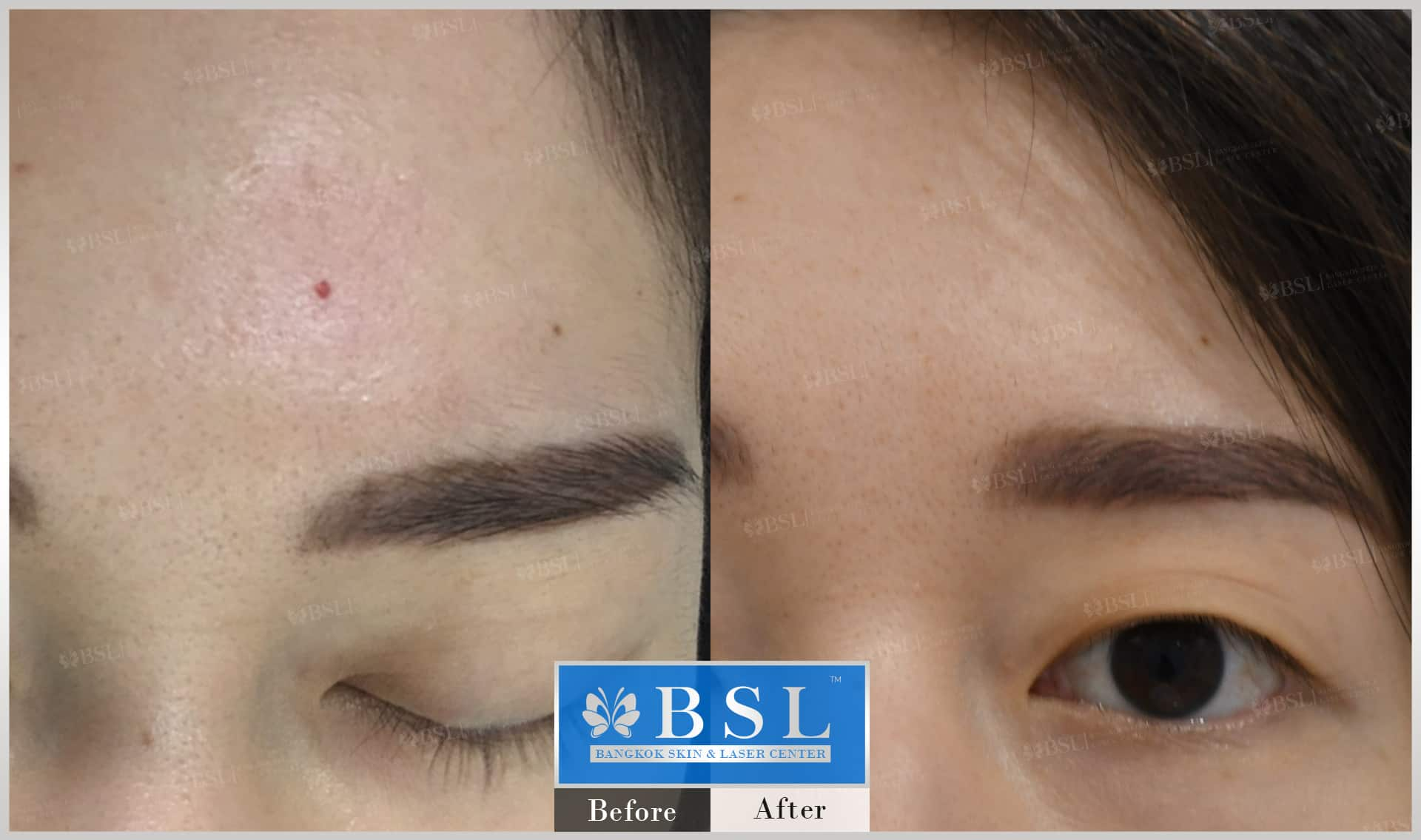 before-after-results-moles-018