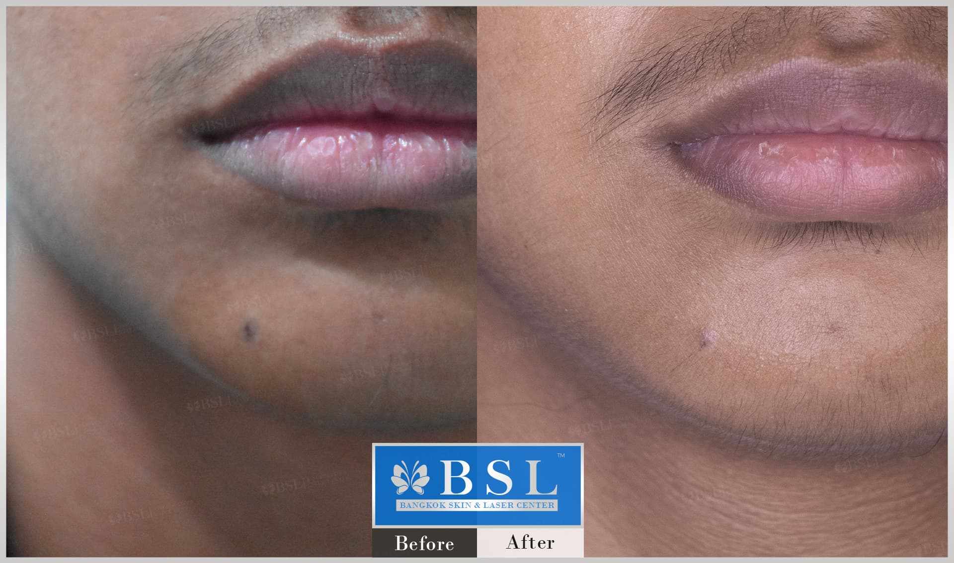 before-after-results-moles-019