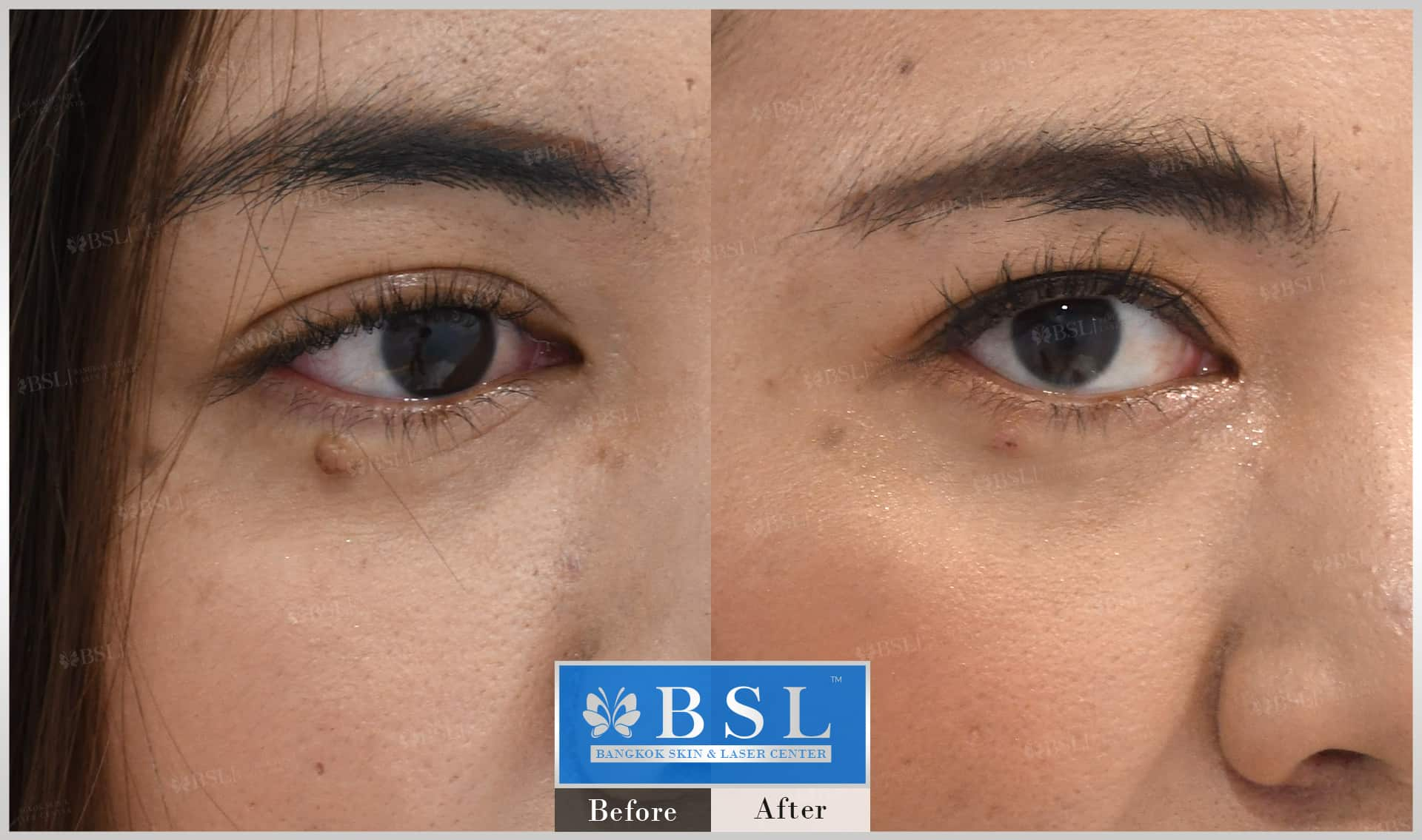 before-after-results-moles-020