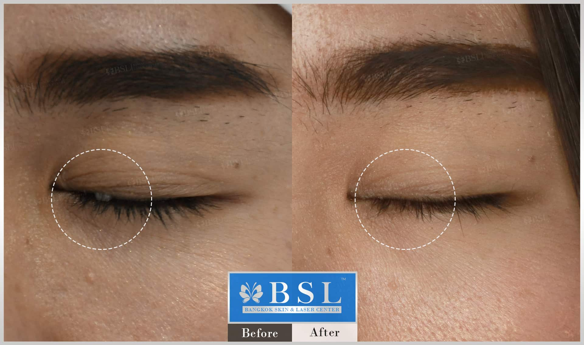 before-after-results-moles-024