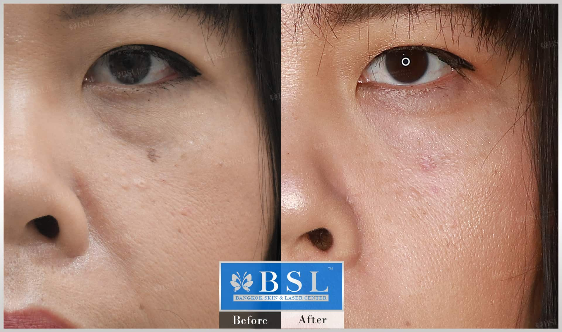 before-after-results-moles-025