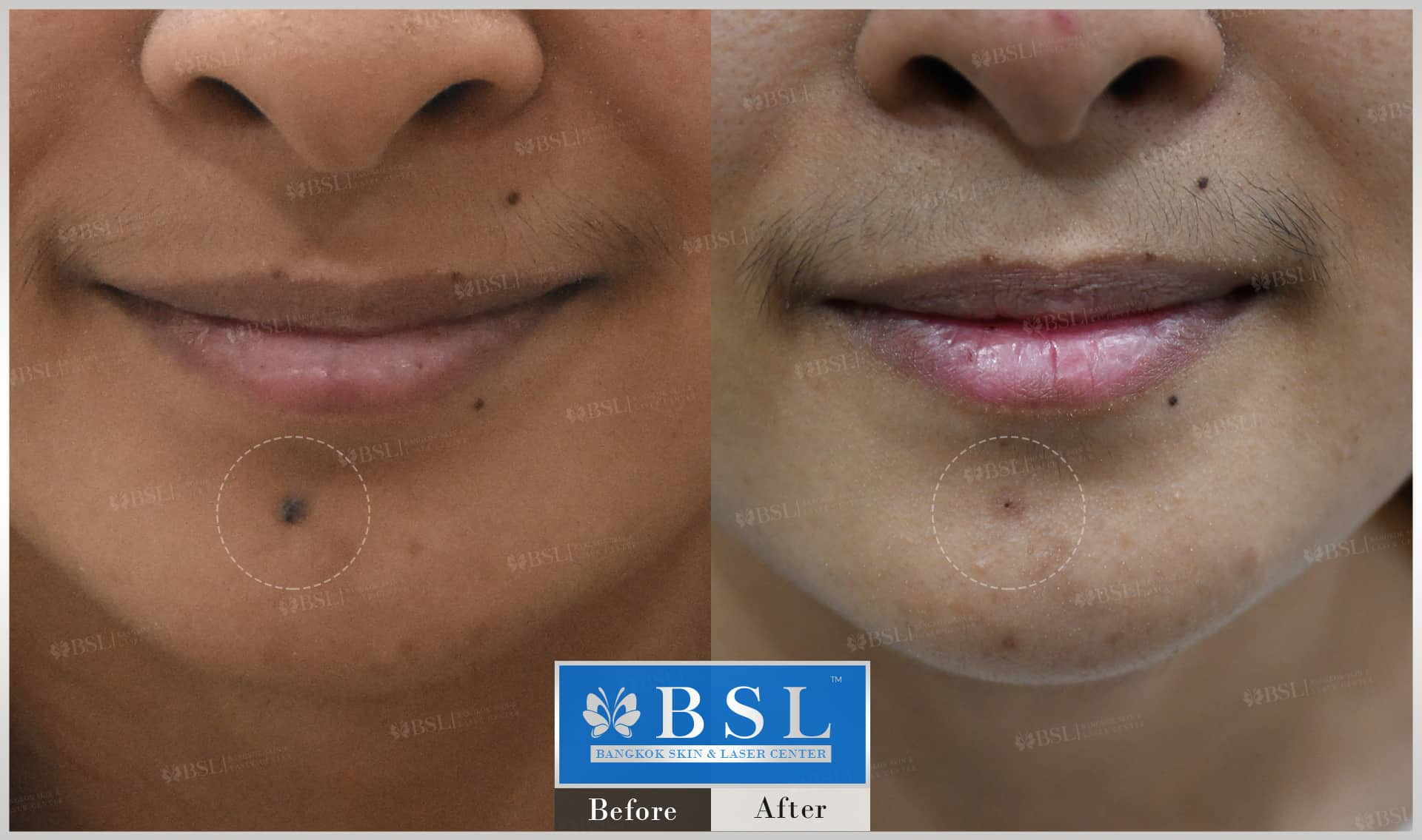 before-after-results-moles-026