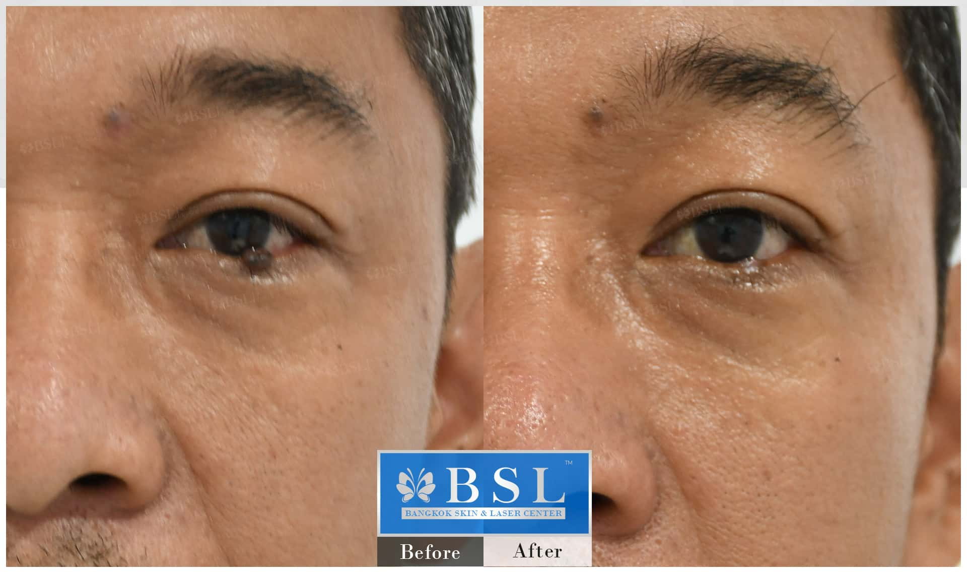 before-after-results-moles-027
