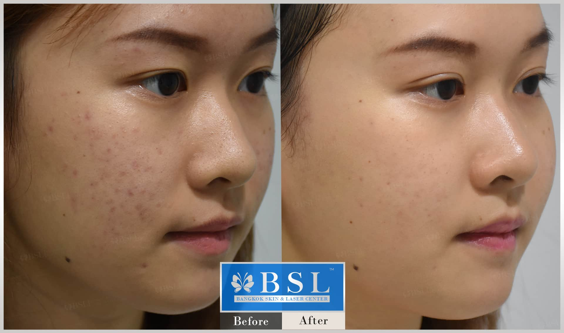 before-after-results-redness-acne-004