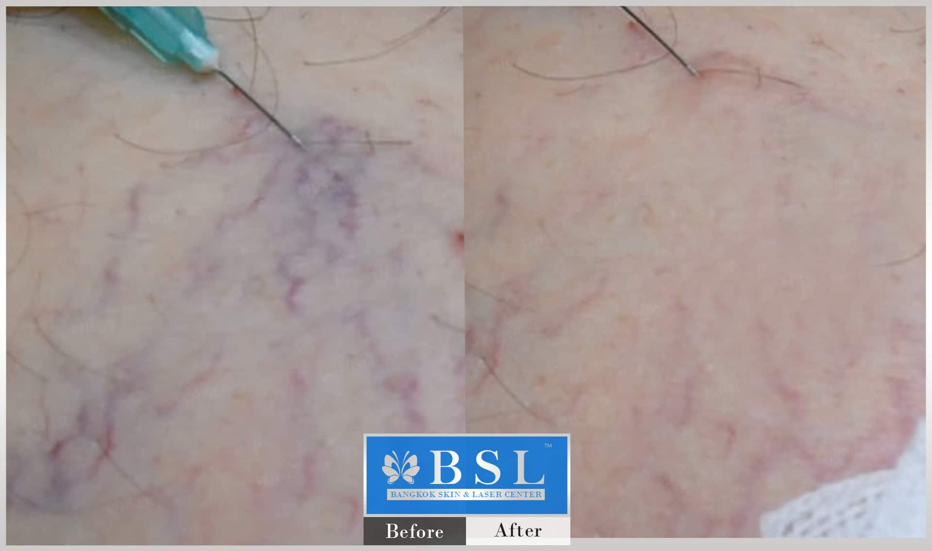 before-after-results-redness-acne-006