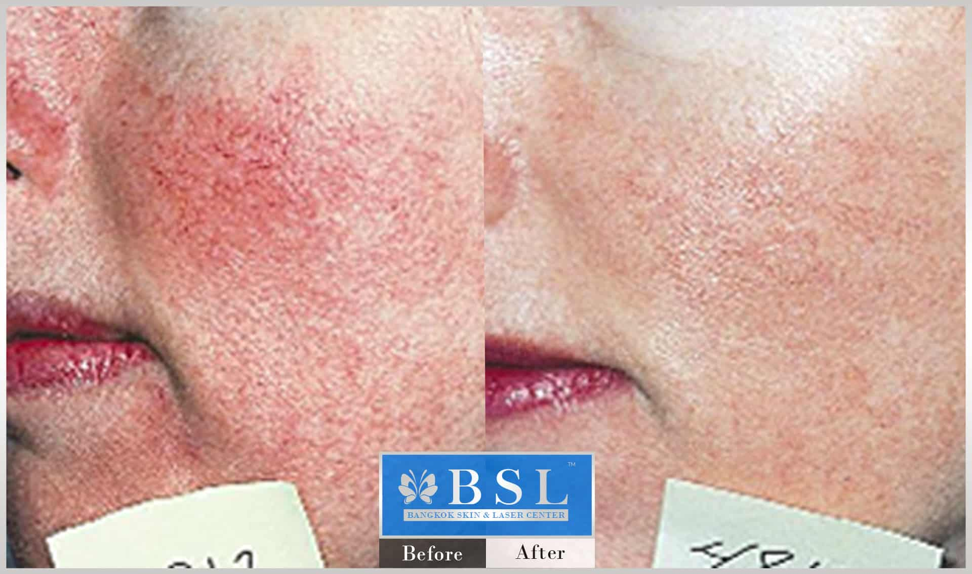 before-after-results-redness-acne-009