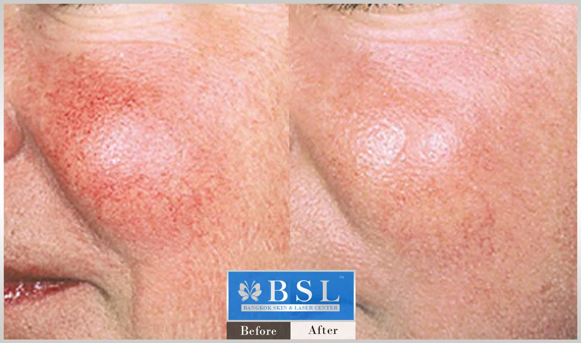 before-after-results-redness-acne-010