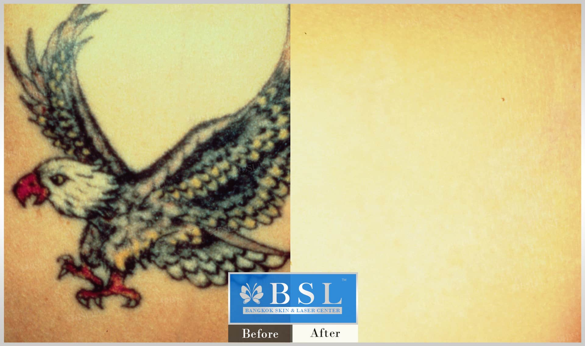 before-after-results-remove-tattoos-005