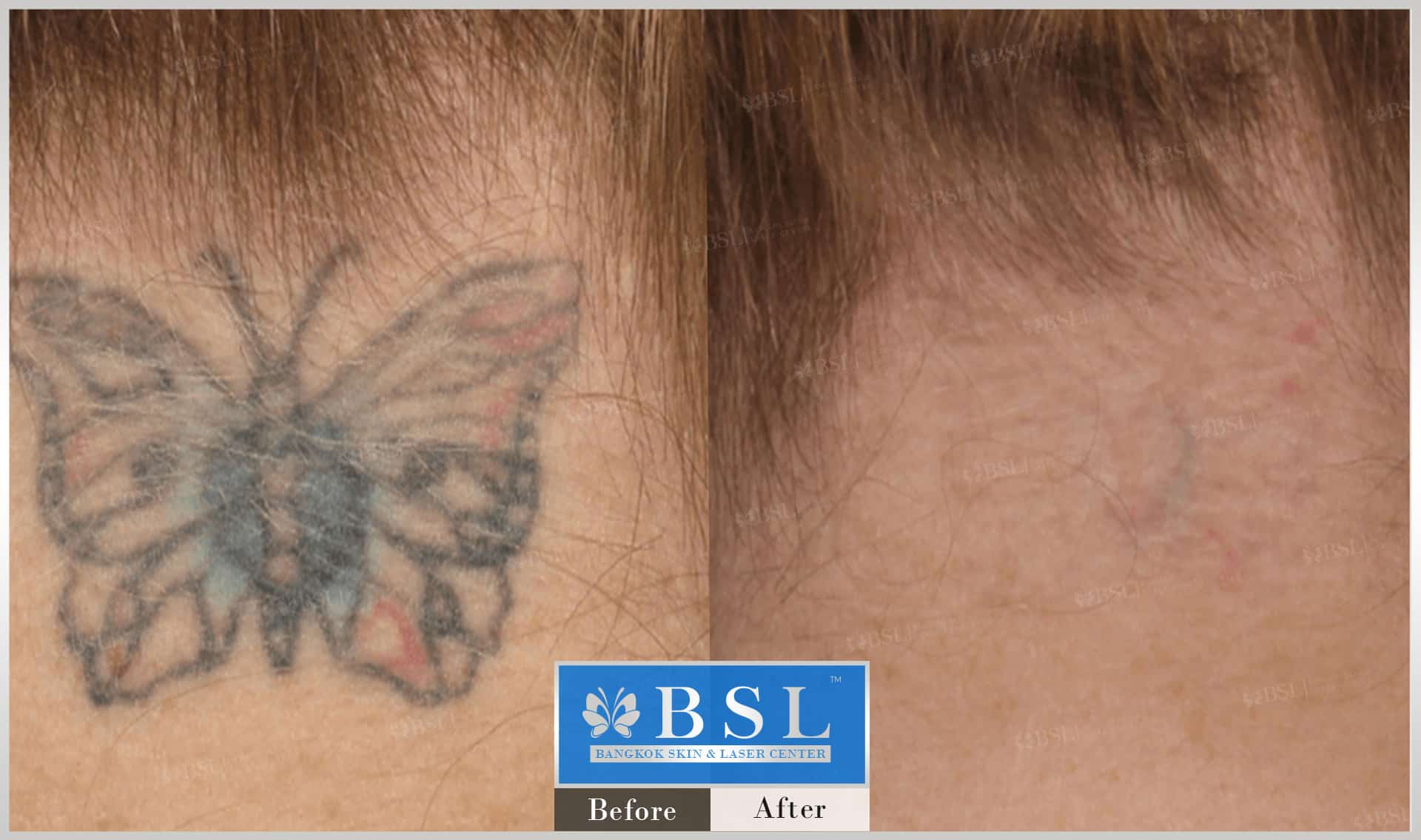 before-after-results-remove-tattoos-006