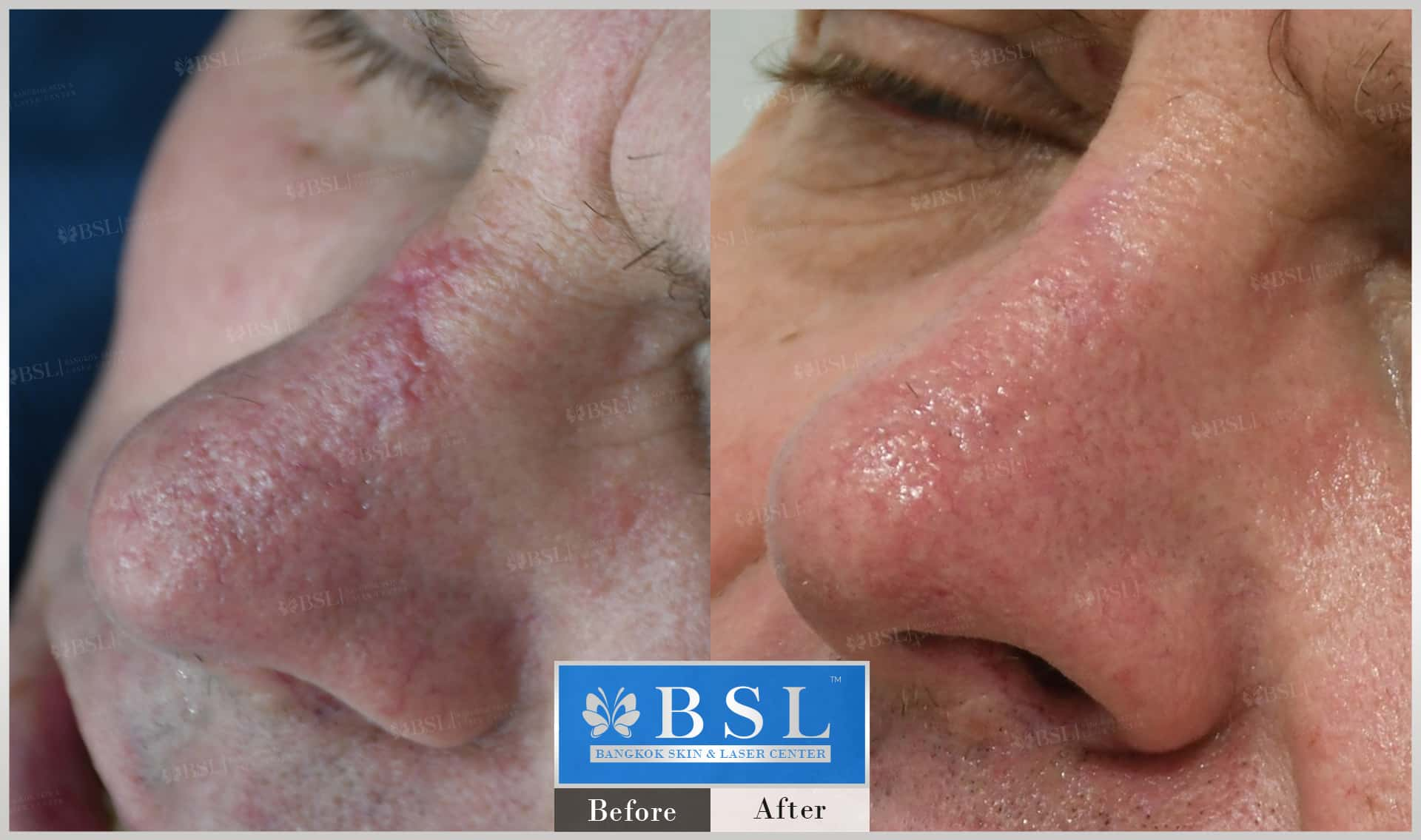 before-after-results-scar-treatment-001