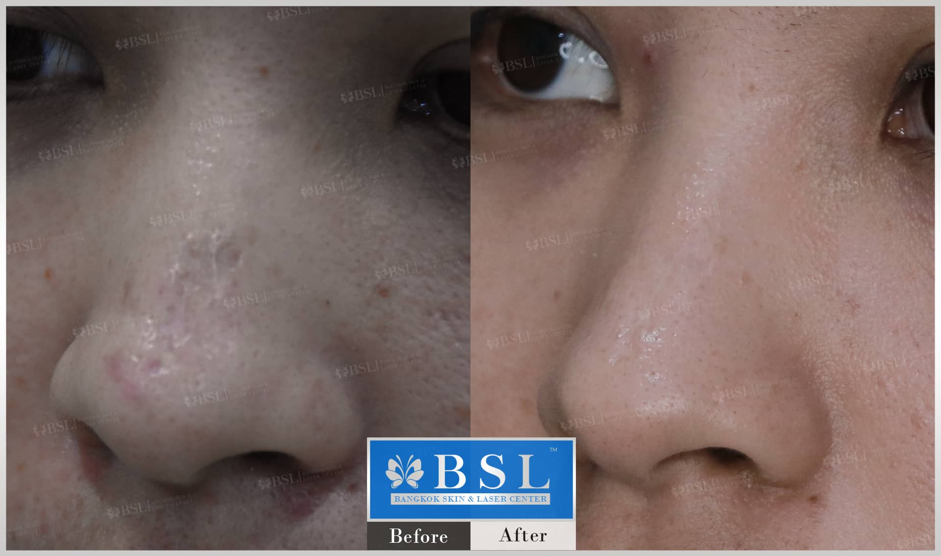 before-after-results-scar-treatment-003