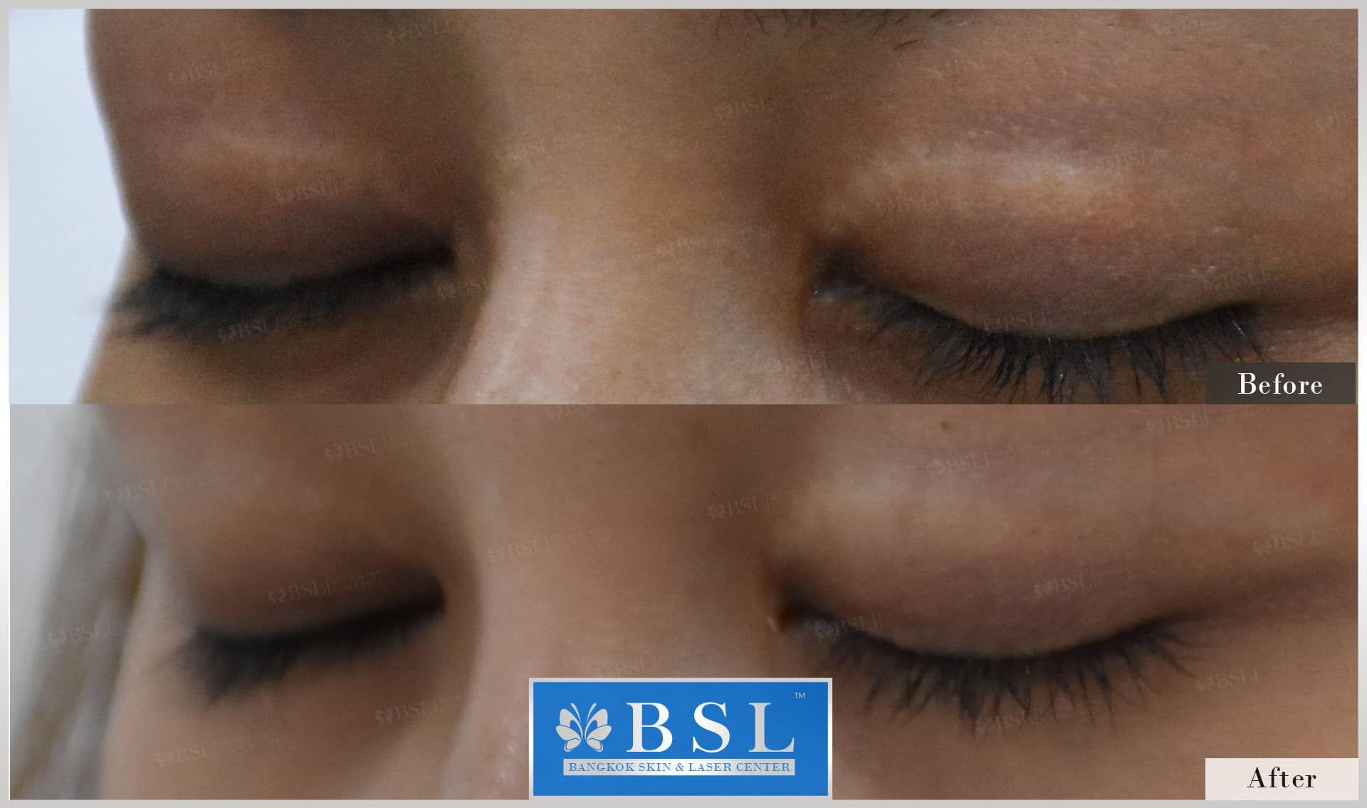 before-after-results-scar-treatment-004