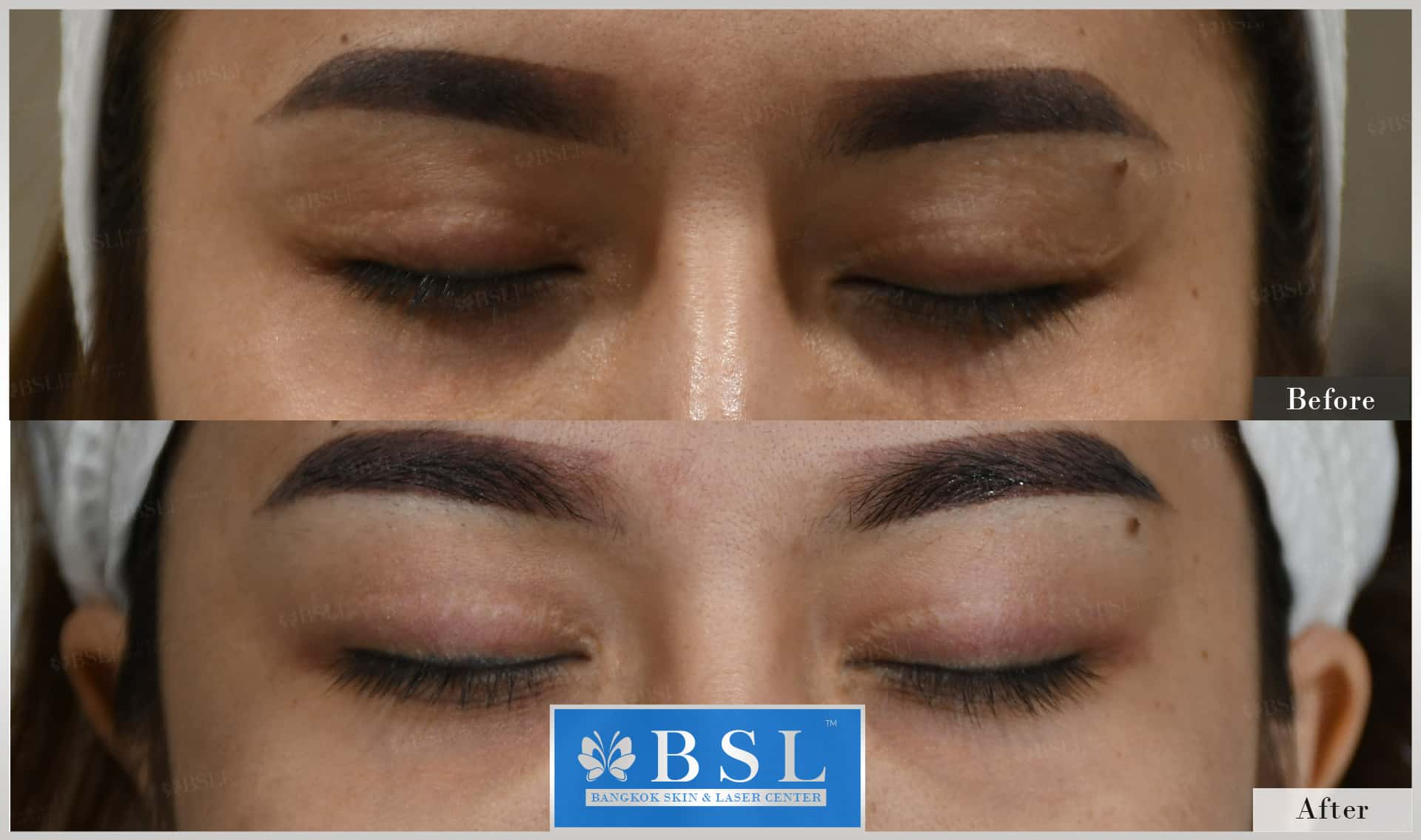 before-after-results-scar-treatment-005