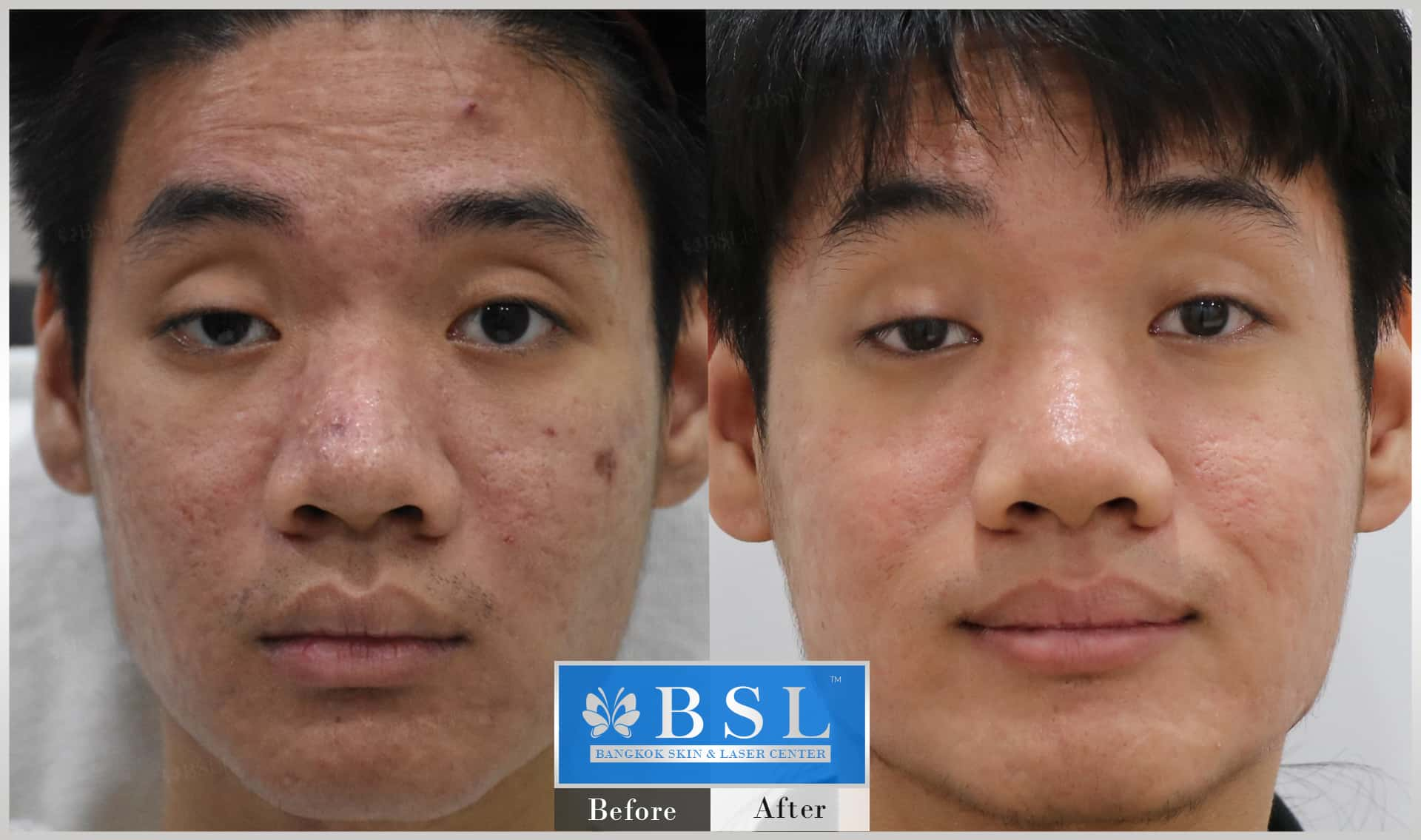 before-after-results-scar-treatment-008