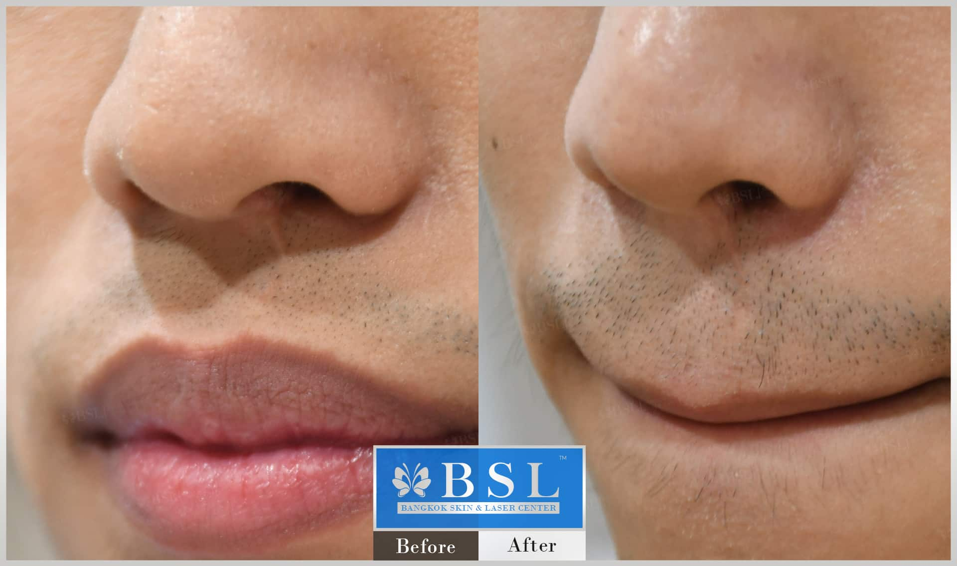 before-after-results-scar-treatment-011