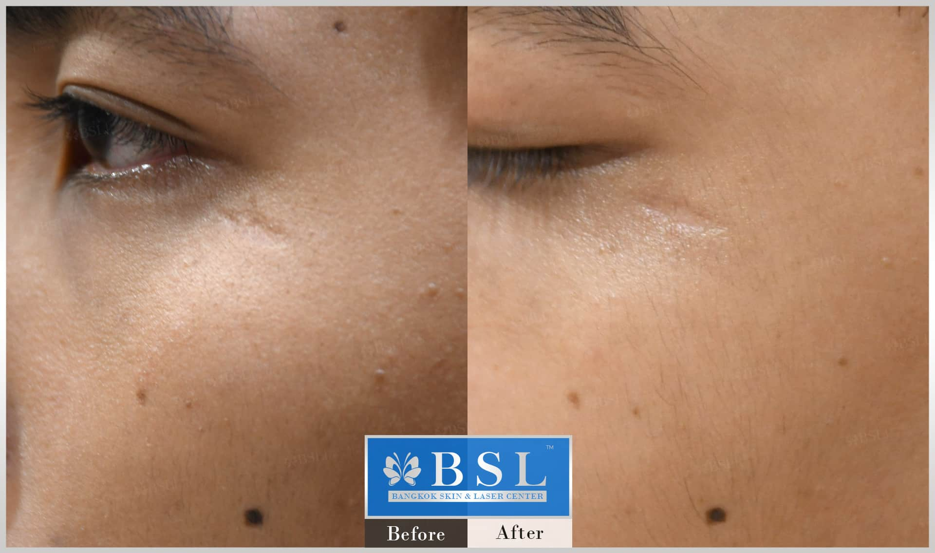 before-after-results-scar-treatment-012