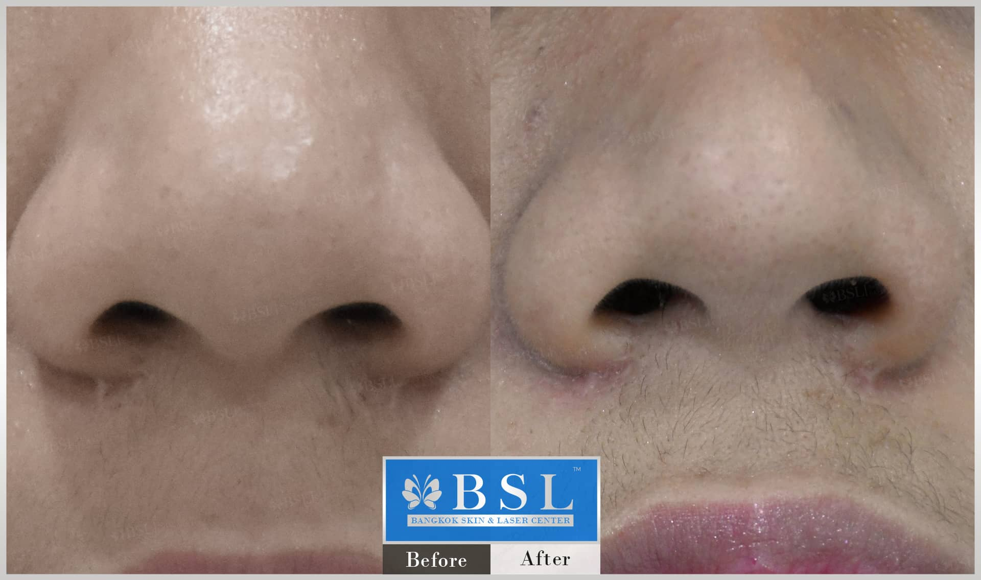 before-after-results-scar-treatment-013
