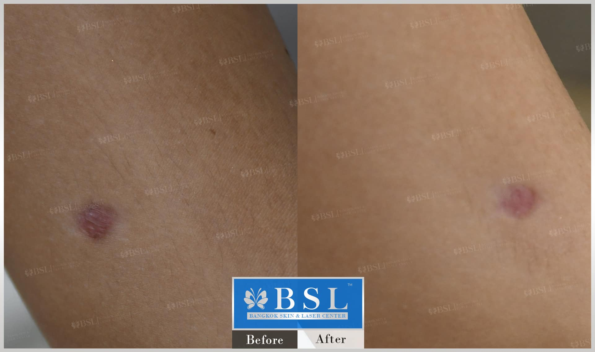 before-after-results-scar-treatment-014