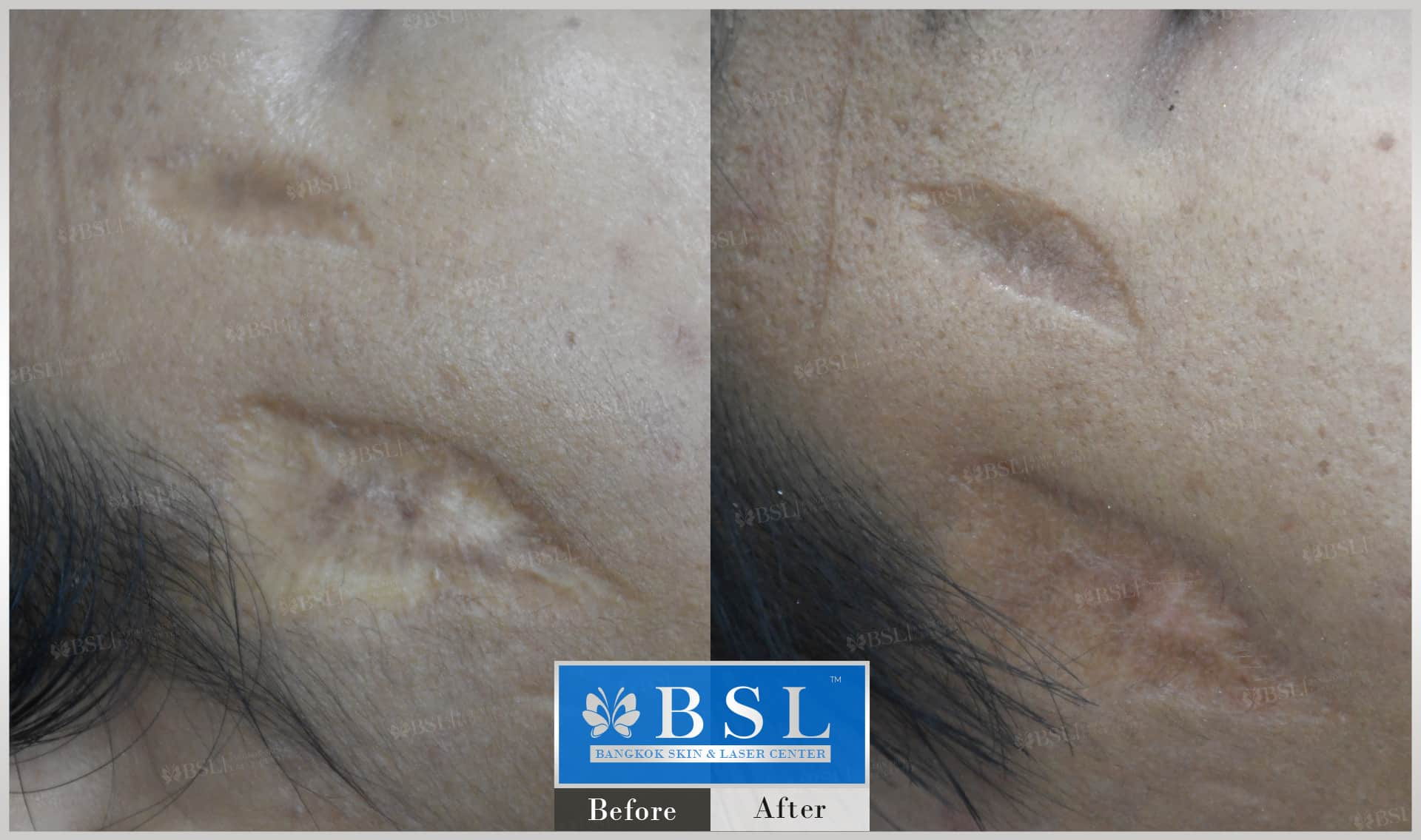 before-after-results-scar-treatment-015