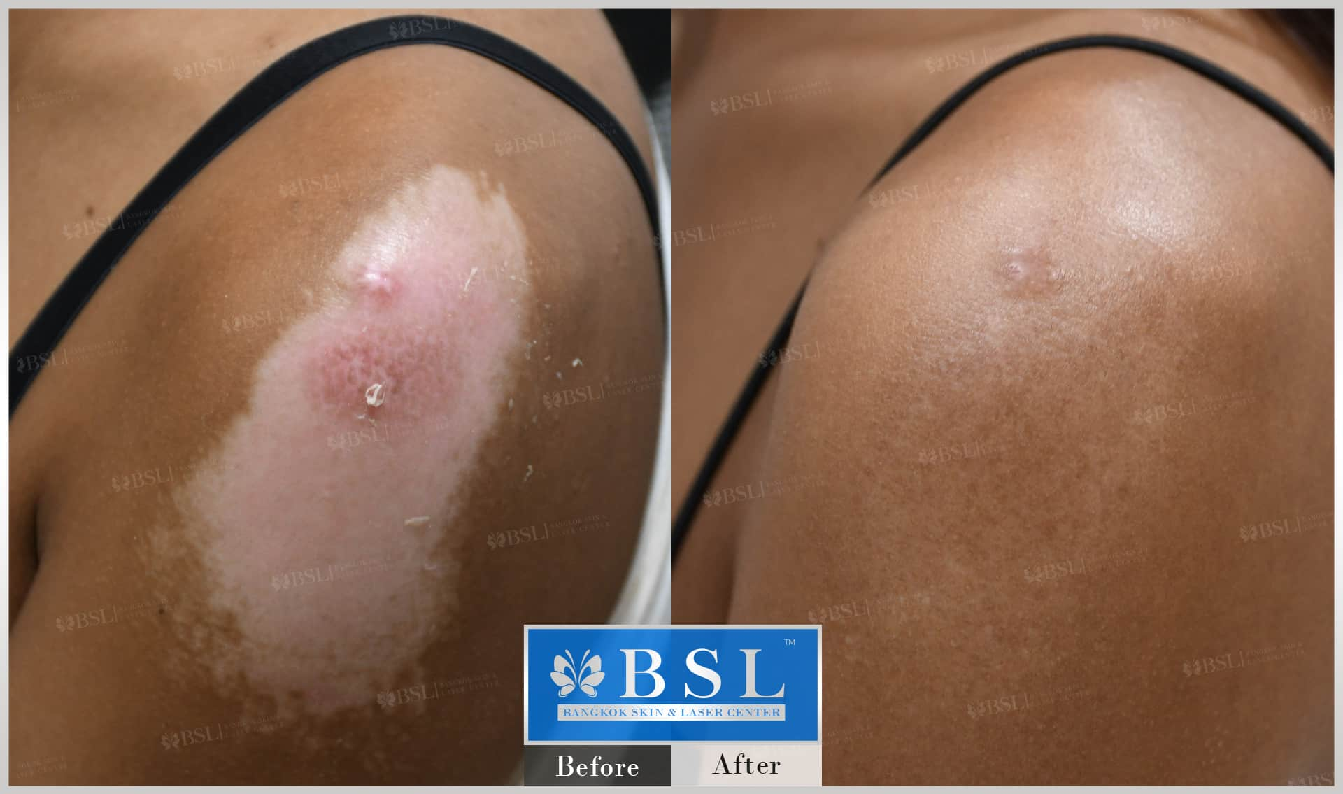 before-after-results-scar-treatment-016