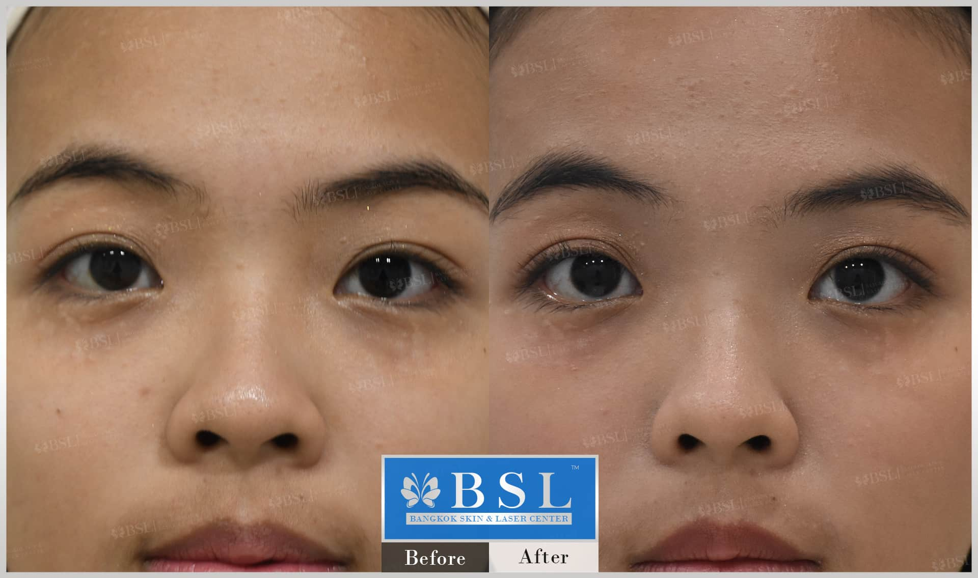 before-after-results-scar-treatment-017