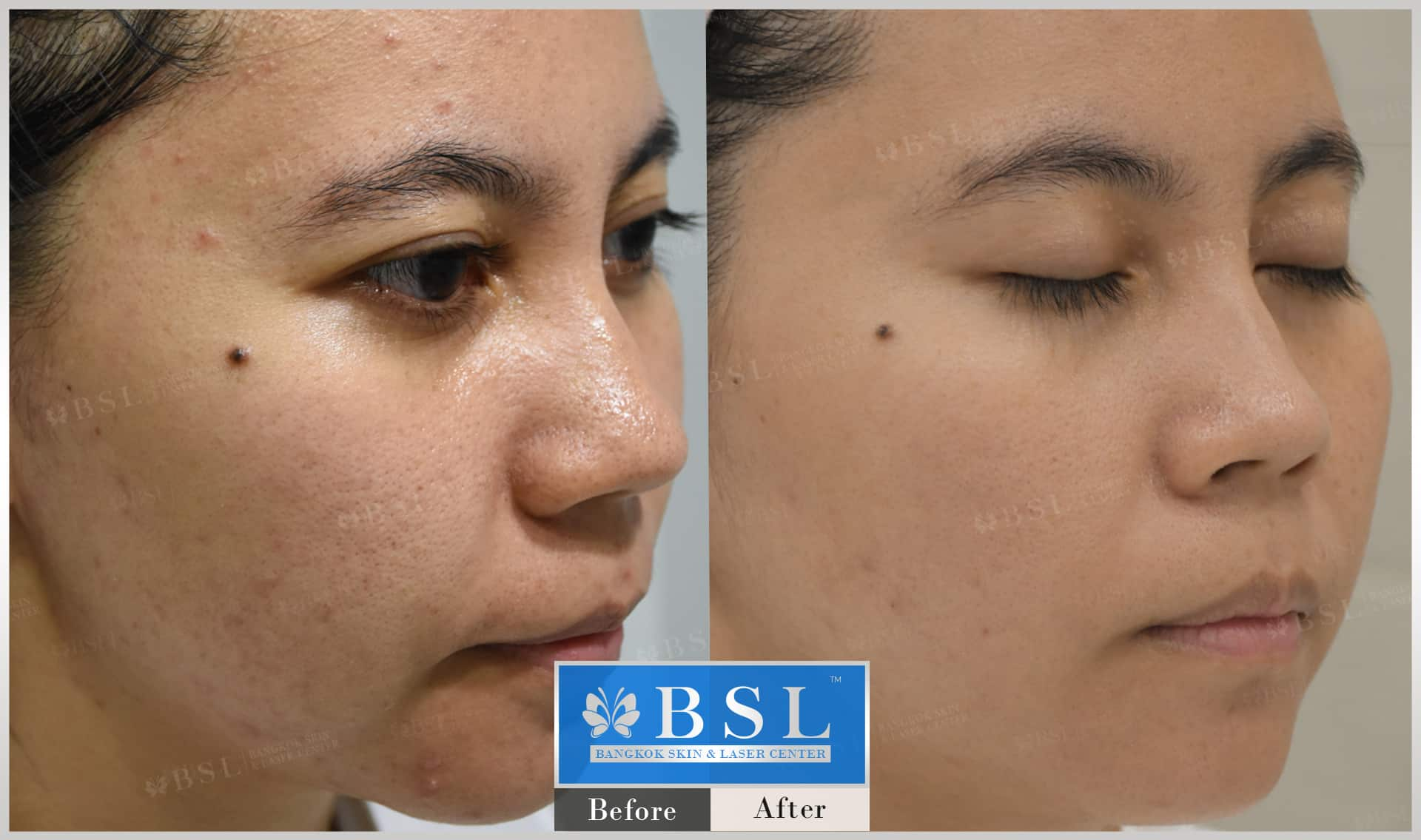 before-after-results-sensitive-skin-001