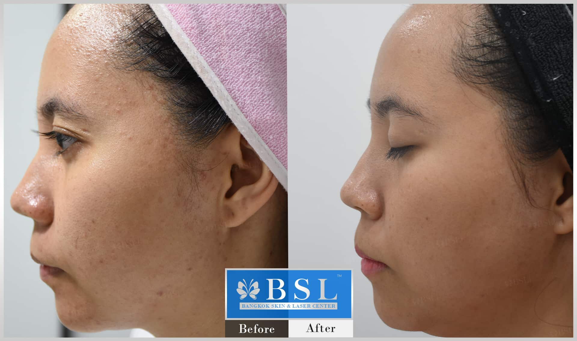 before-after-results-sensitive-skin-002