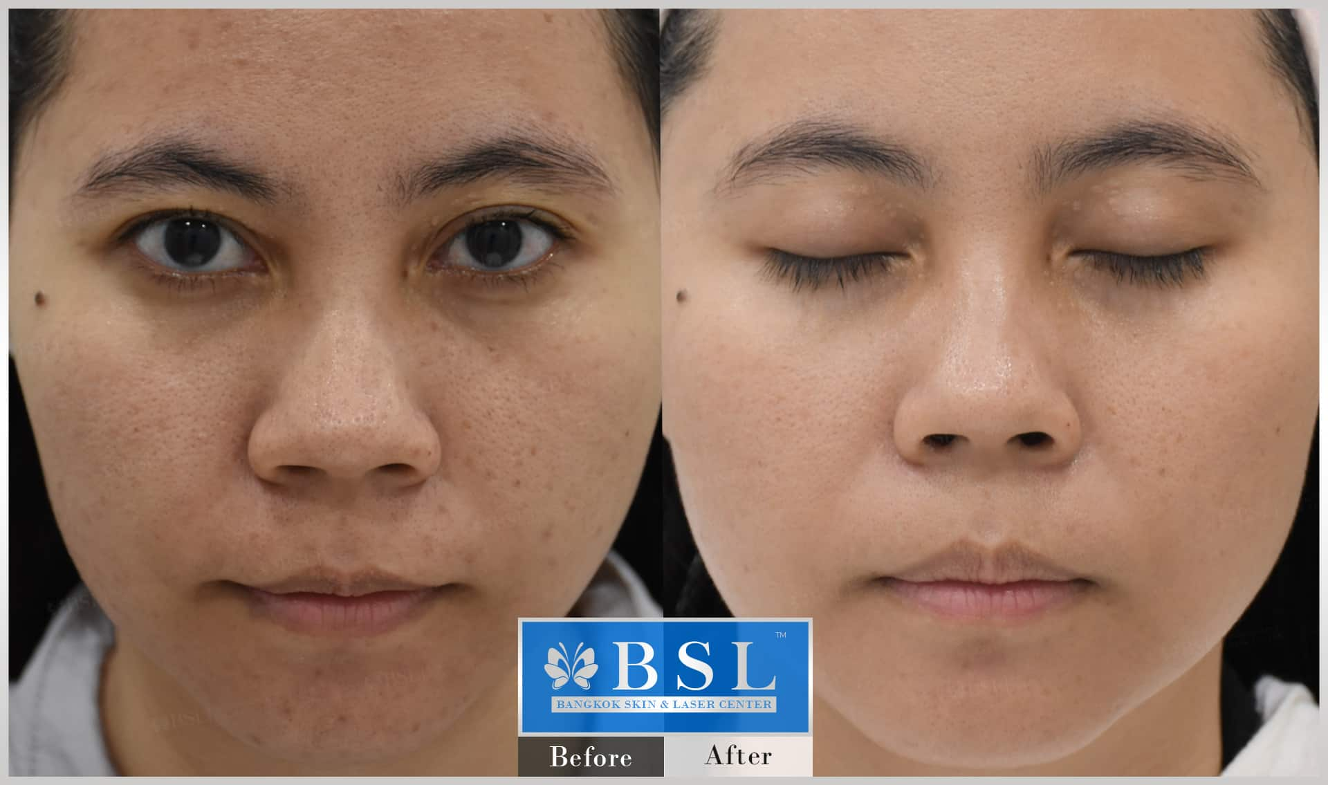 before-after-results-sensitive-skin-003