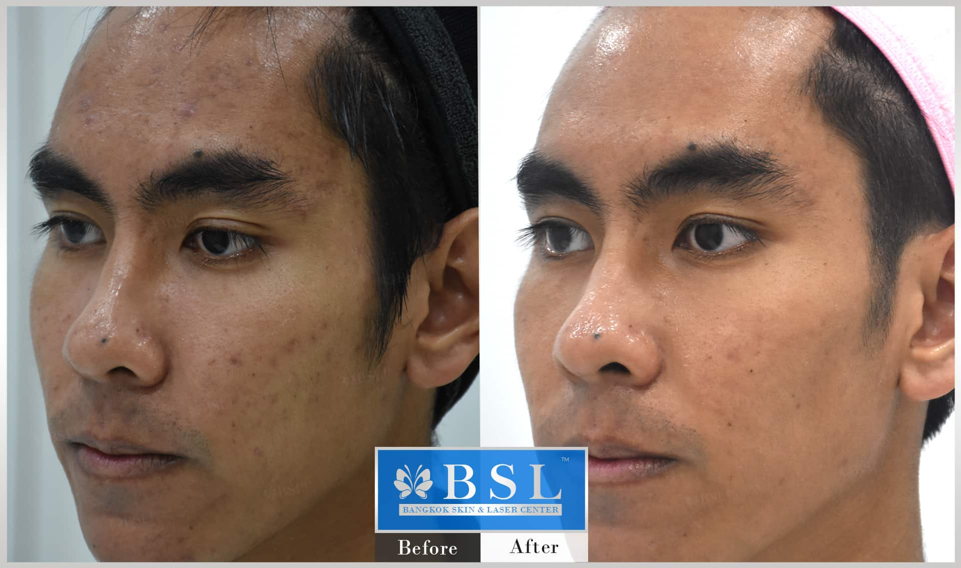 before-after-results-sensitive-skin-007