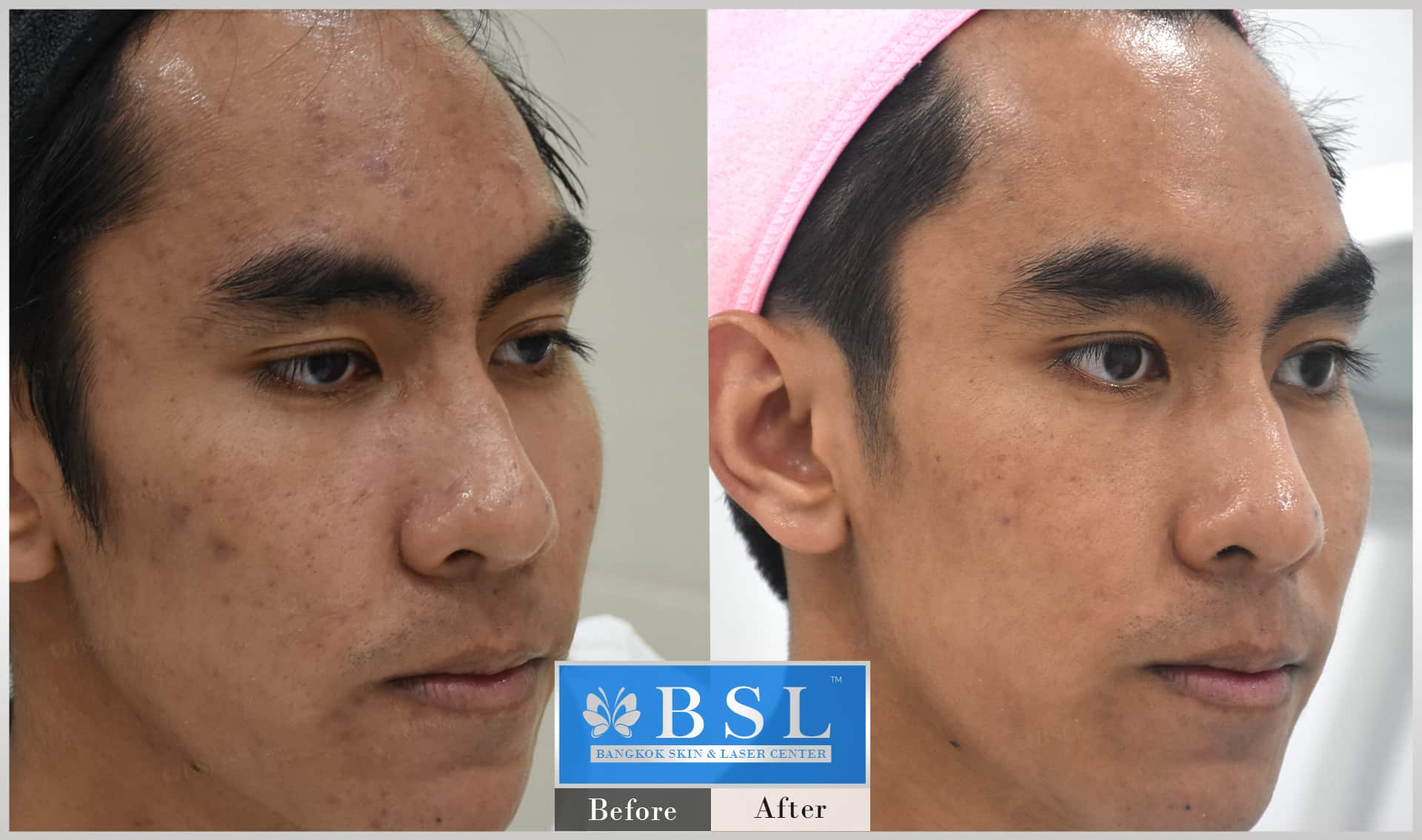 before-after-results-sensitive-skin-008