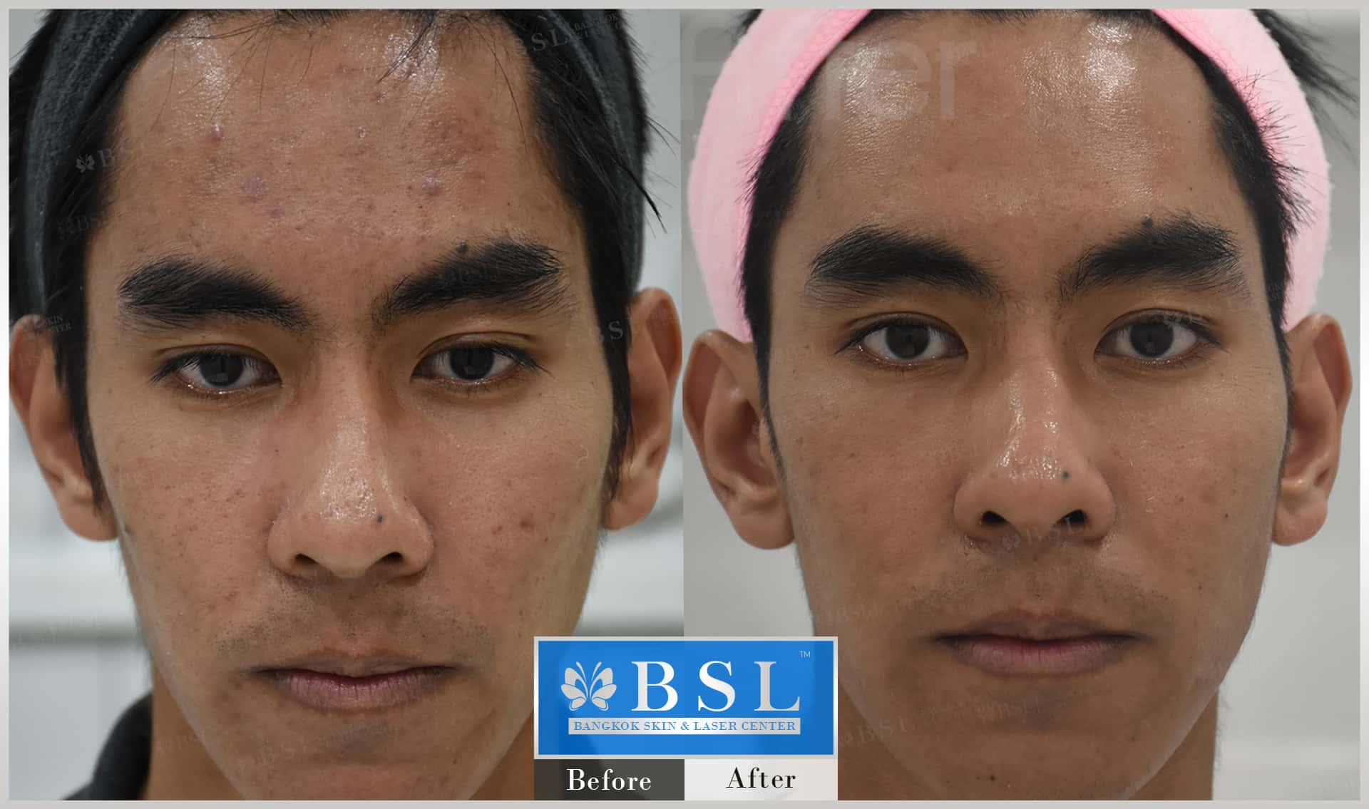 before-after-results-sensitive-skin-009