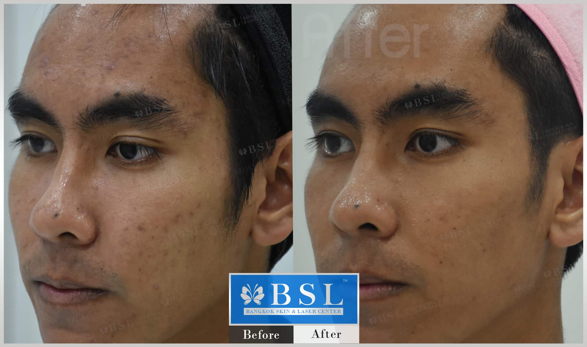 before-after-results-sensitive-skin-010