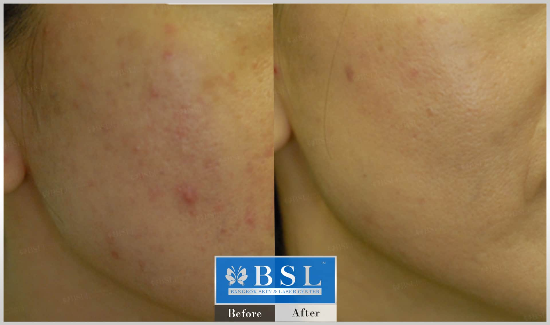 before-after-results-sensitive-skin-012
