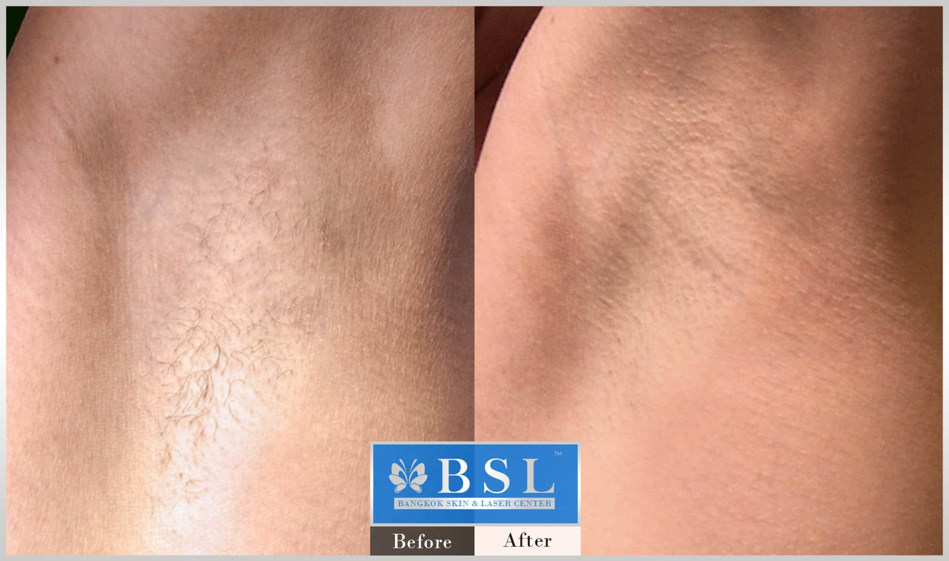 before-after-results-smooth-white-armpits-002