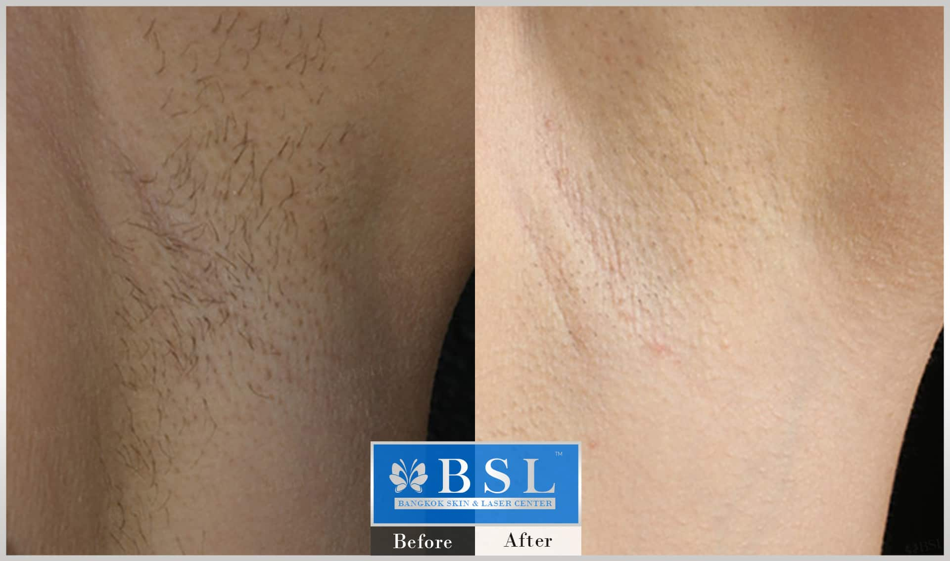before-after-results-smooth-white-armpits-003