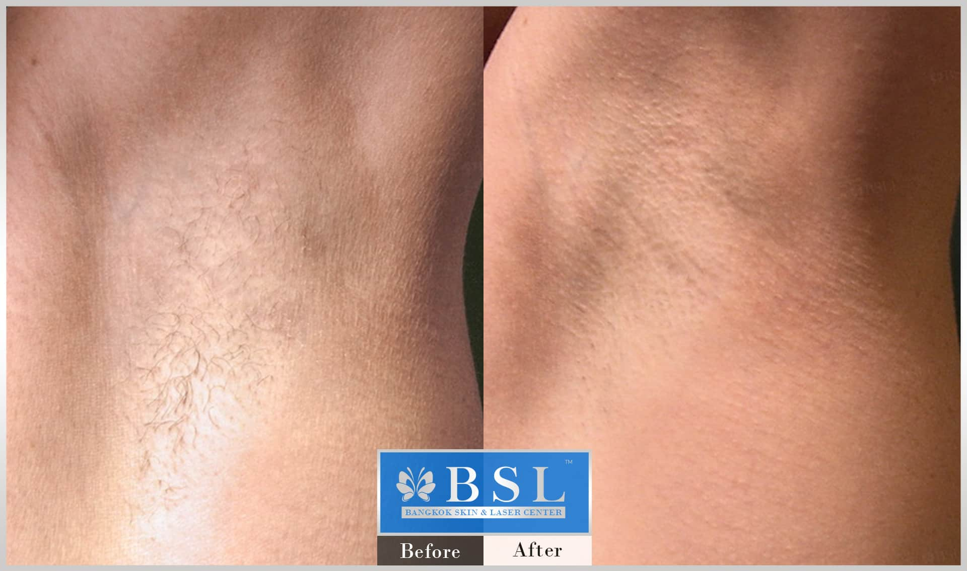 before-after-results-smooth-white-armpits-005