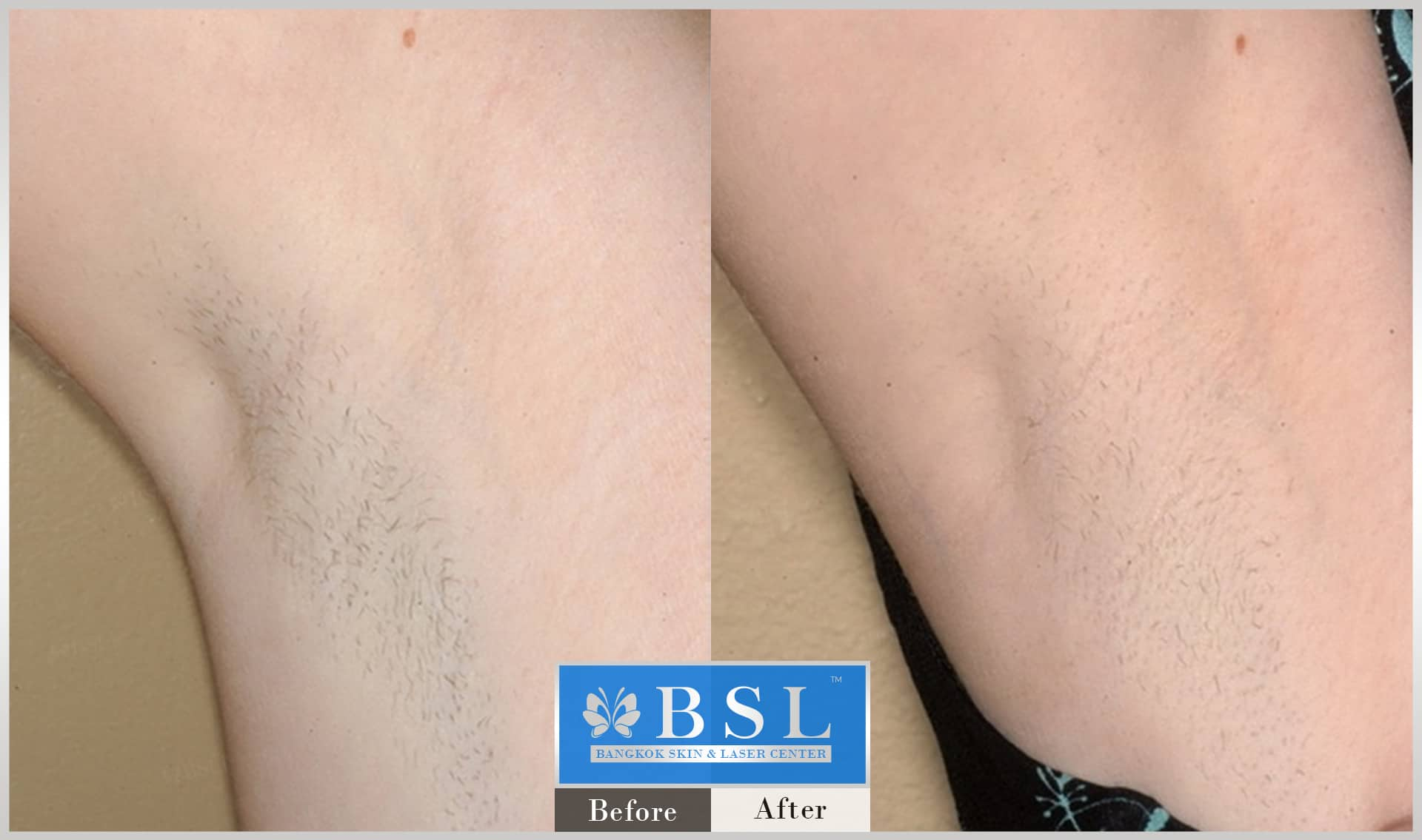 before-after-results-smooth-white-armpits-006
