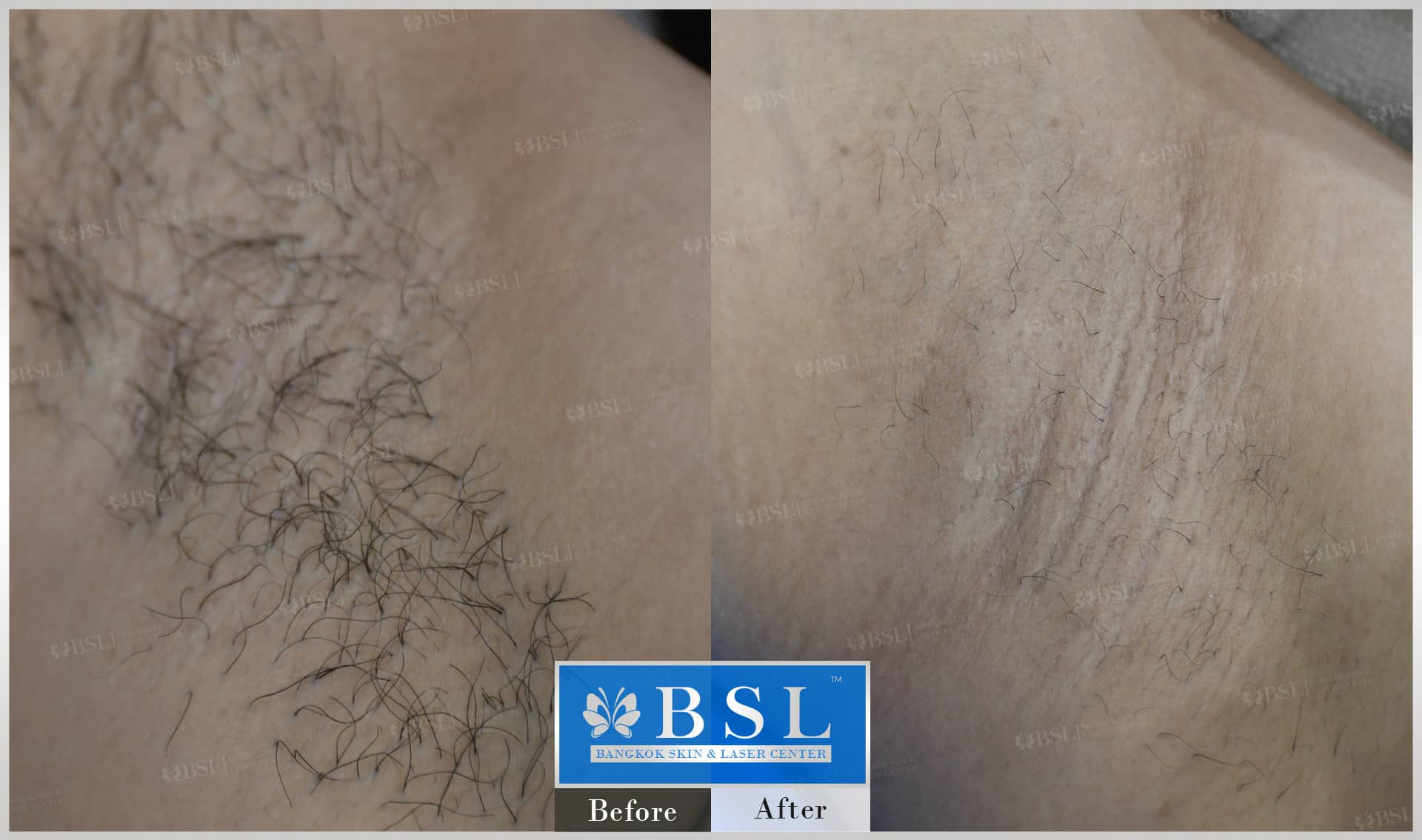 before-after-results-smooth-white-armpits-007