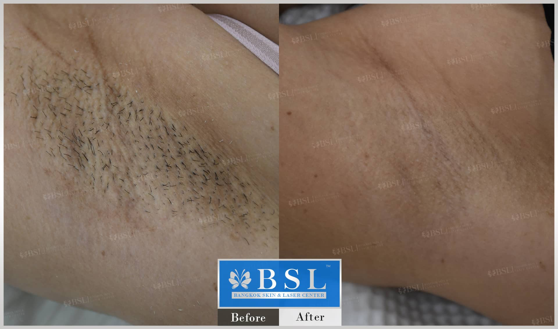 before-after-results-smooth-white-armpits-008