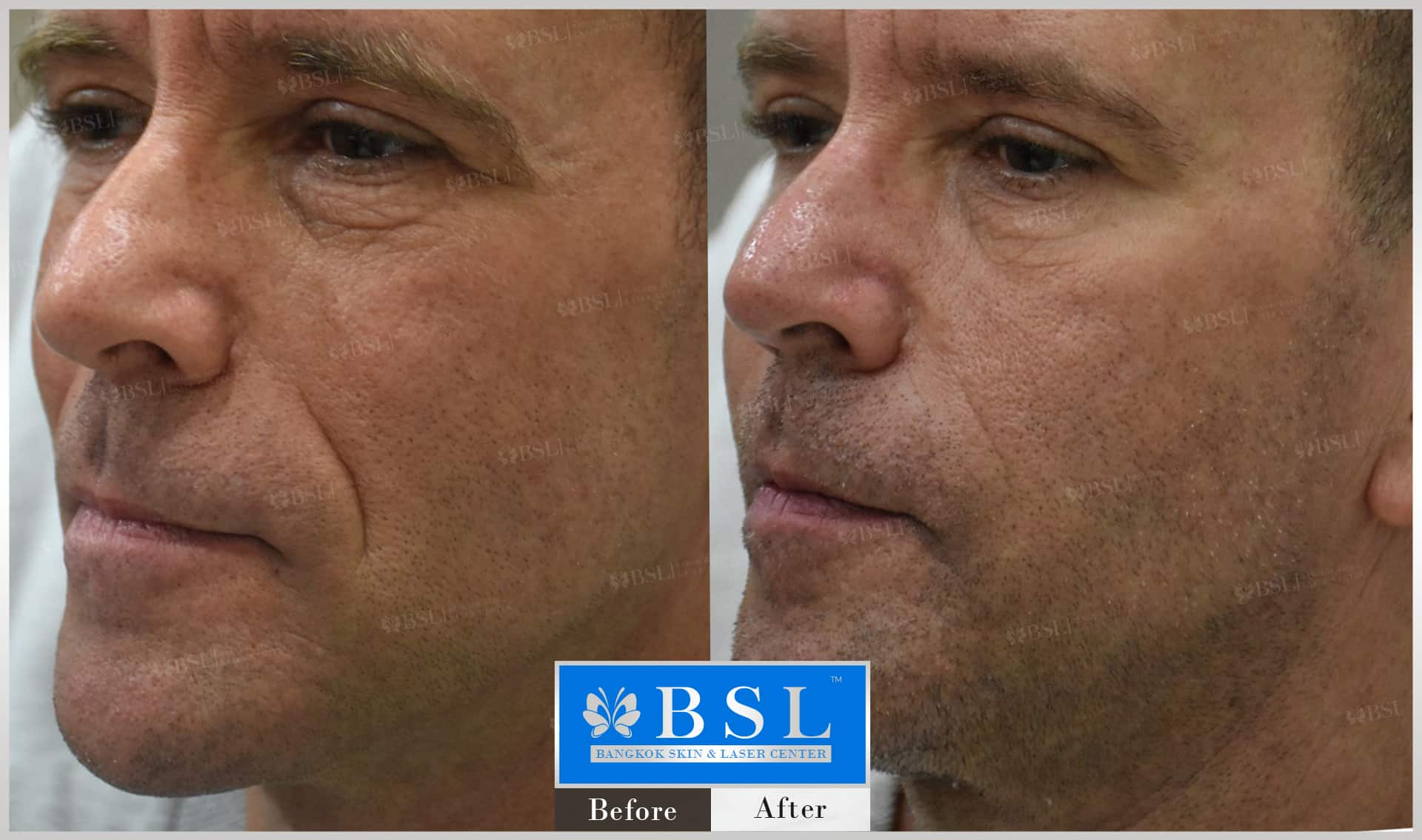 before-after-results-wrinkles-reduction-001