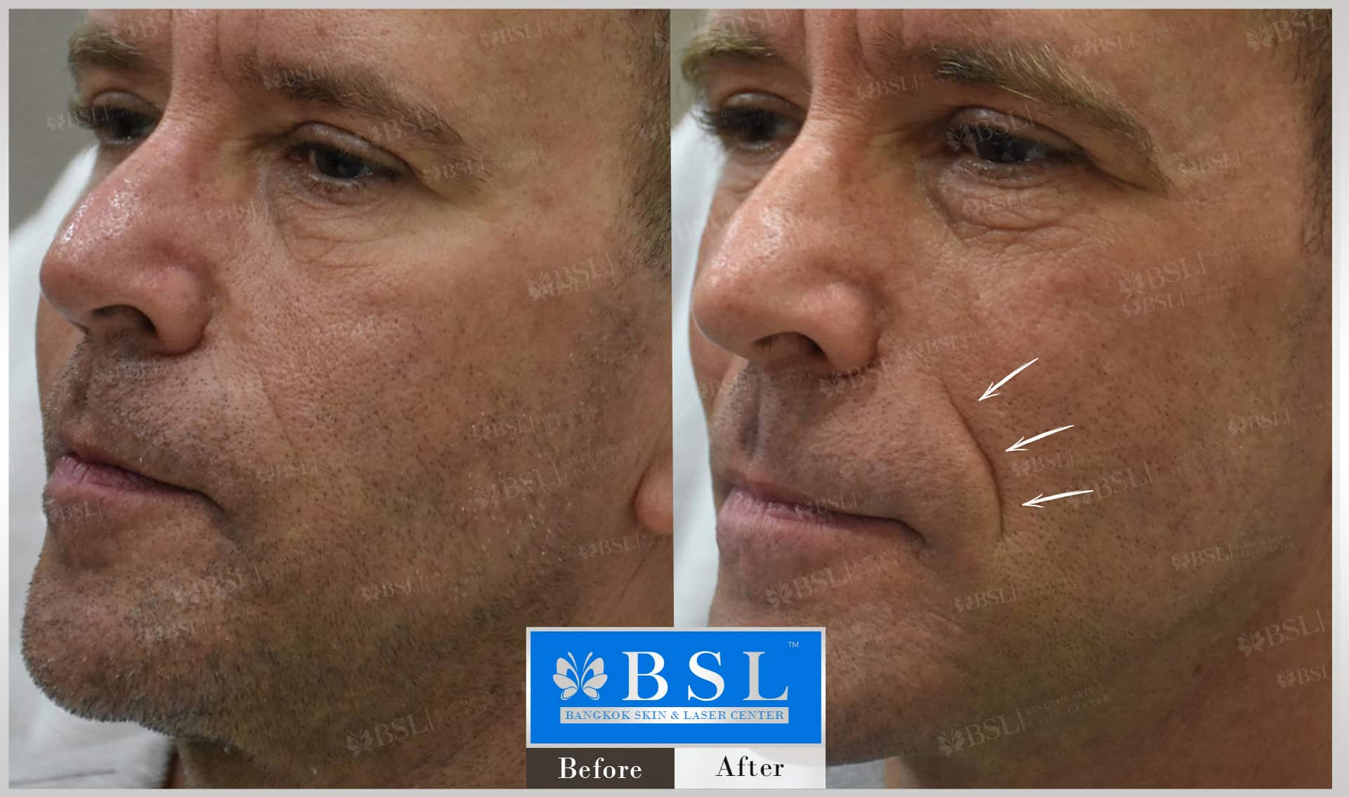 before-after-results-wrinkles-reduction-002