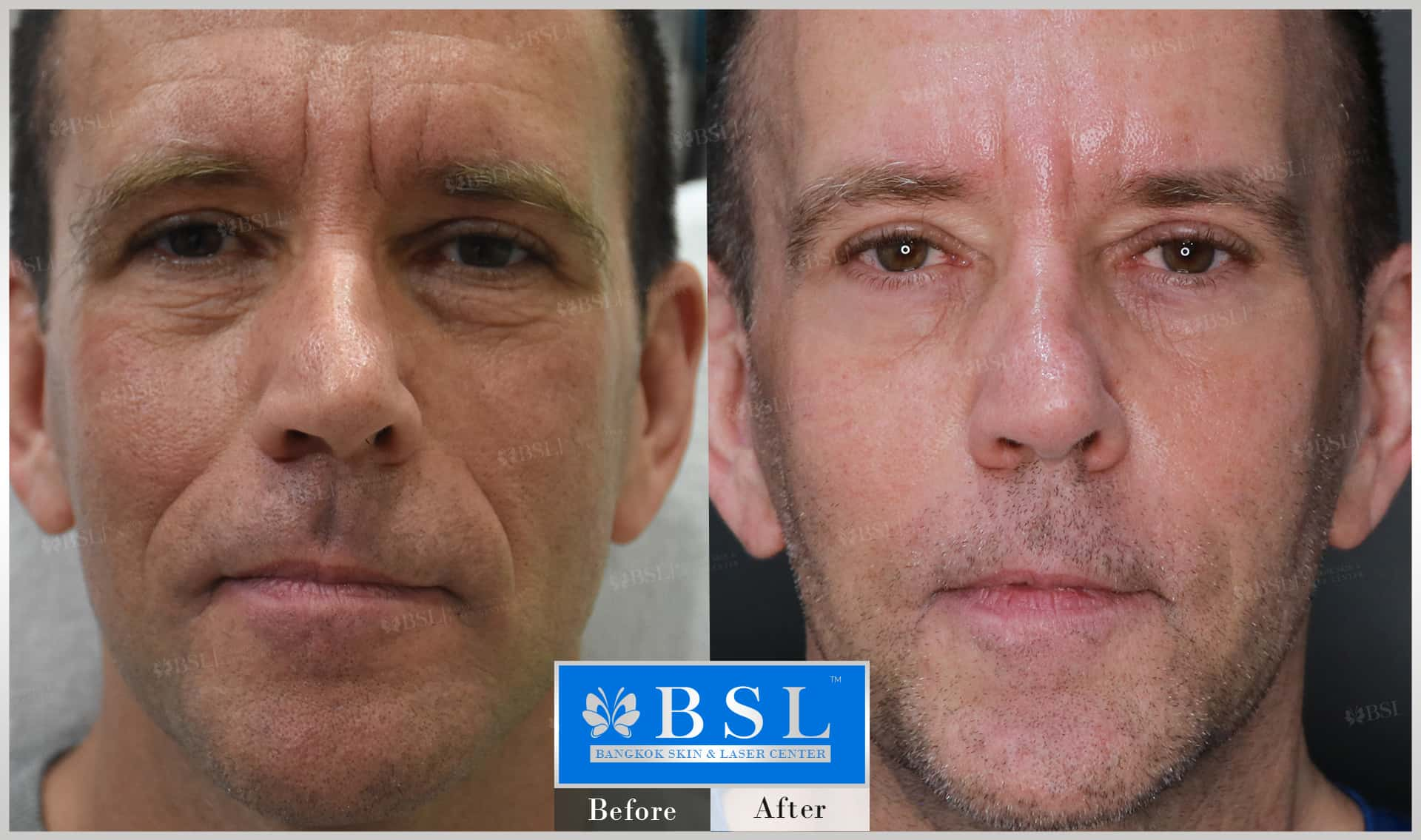 before-after-results-wrinkles-reduction-003