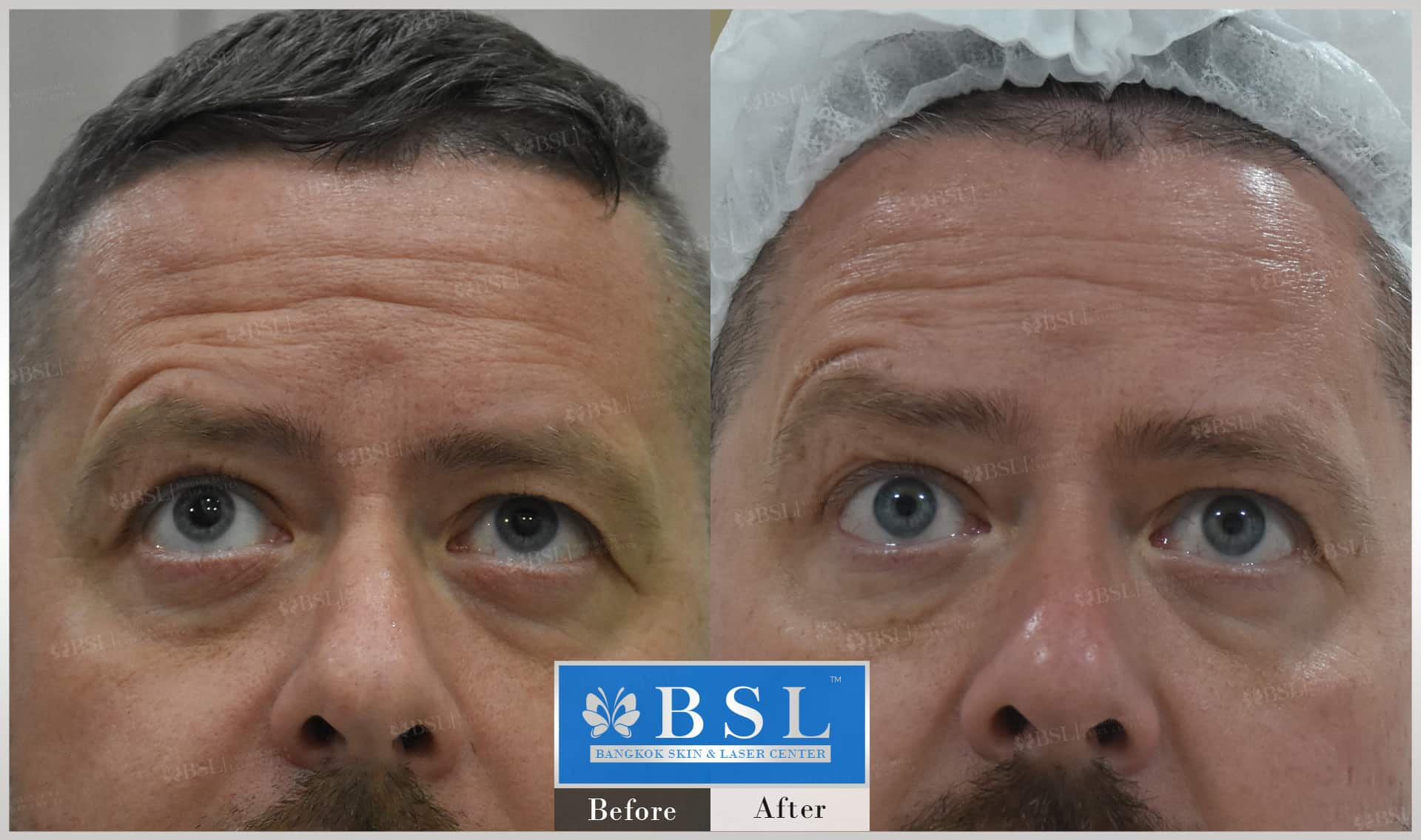 before-after-results-wrinkles-reduction-004
