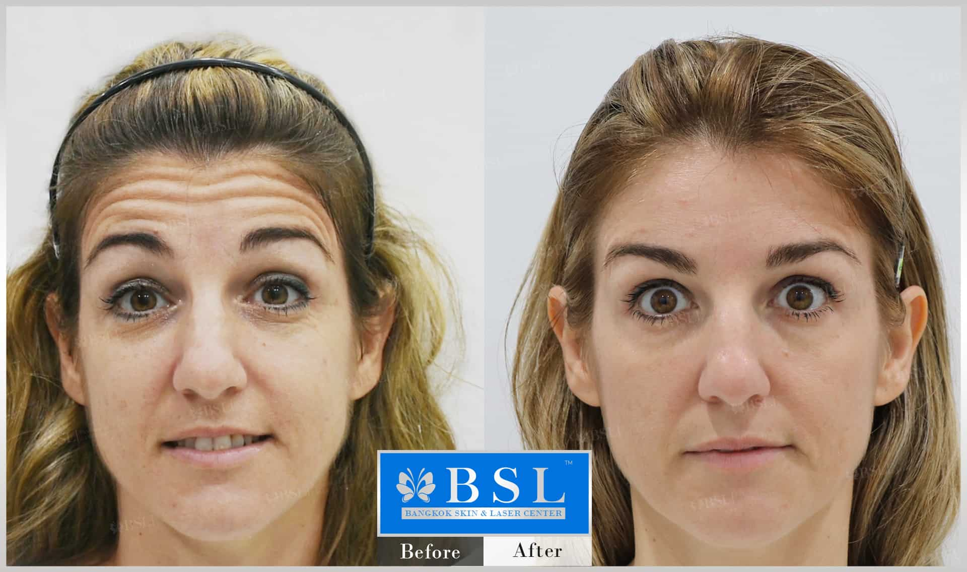 before-after-results-wrinkles-reduction-005