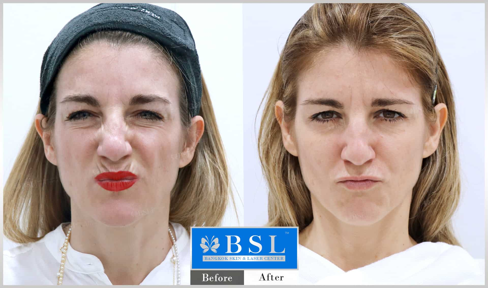 before-after-results-wrinkles-reduction-006