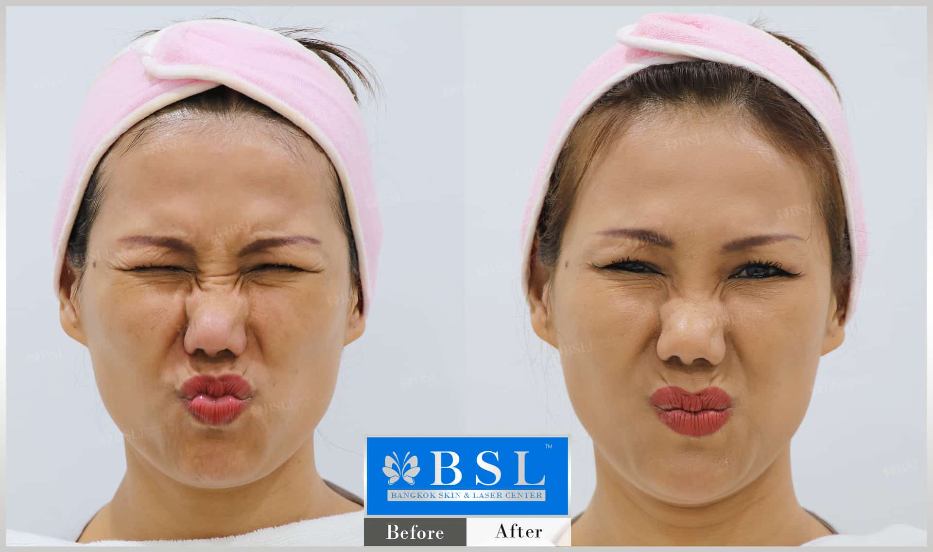 before-after-results-wrinkles-reduction-007