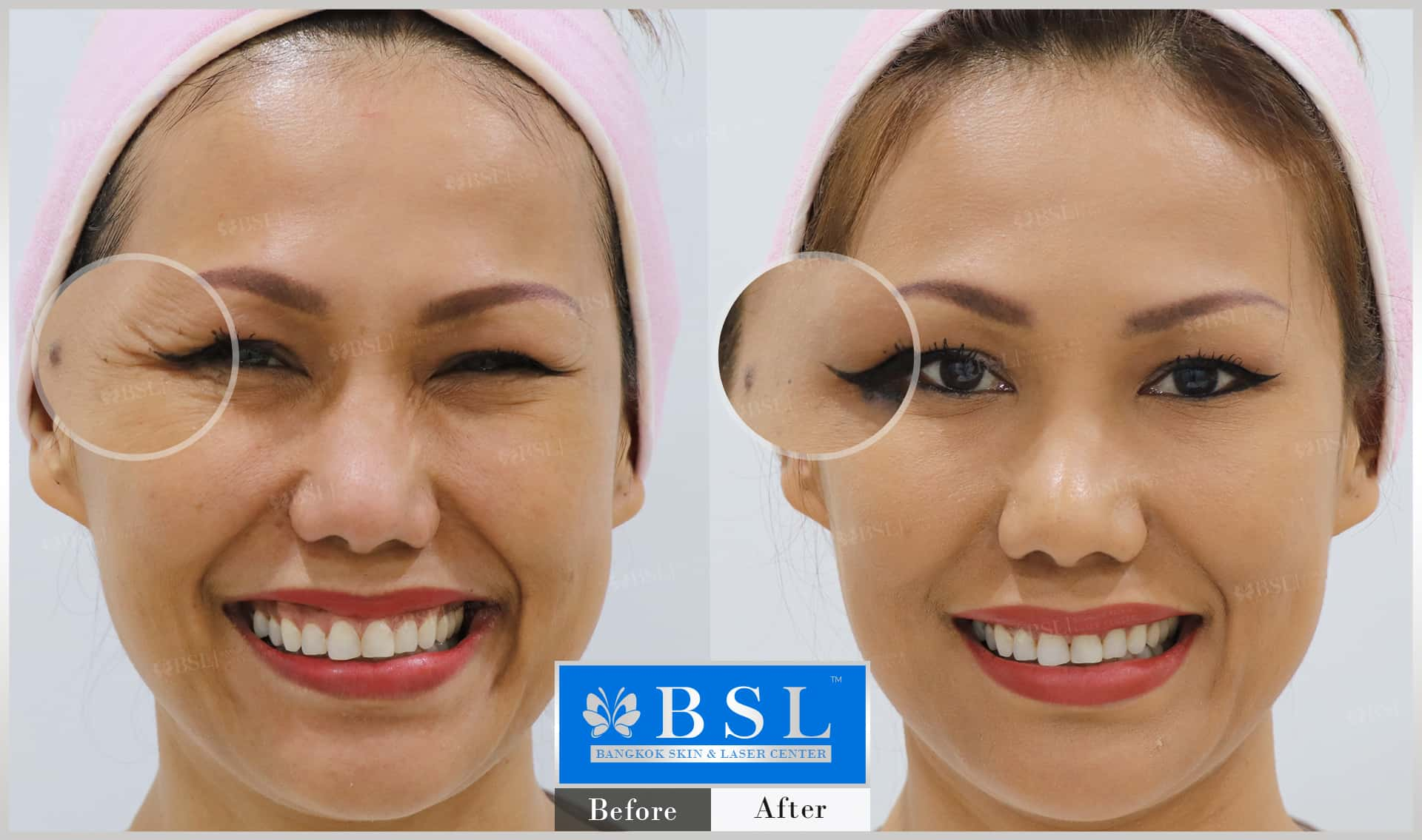 before-after-results-wrinkles-reduction-008